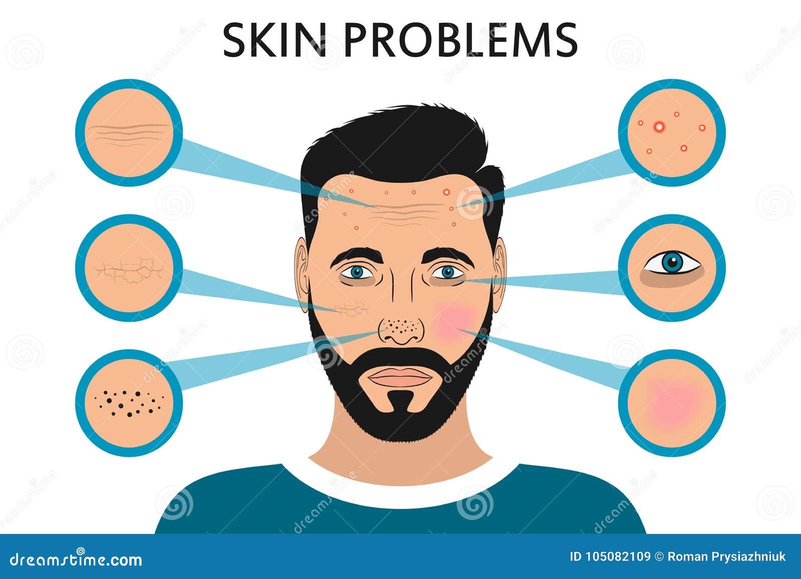 男性面孔皮肤问题 粉刺和丘疹、交通事故多发地段、赤红、干燥、圈子在眼睛下和皱痕 向量