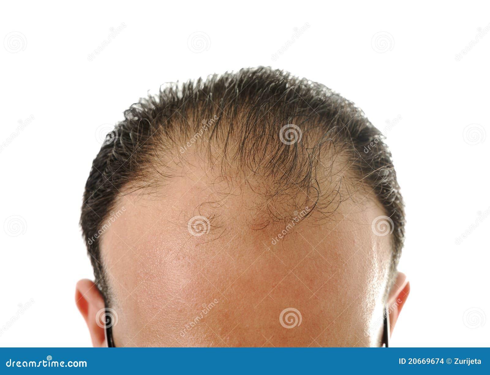 疏松头发,光秃的人