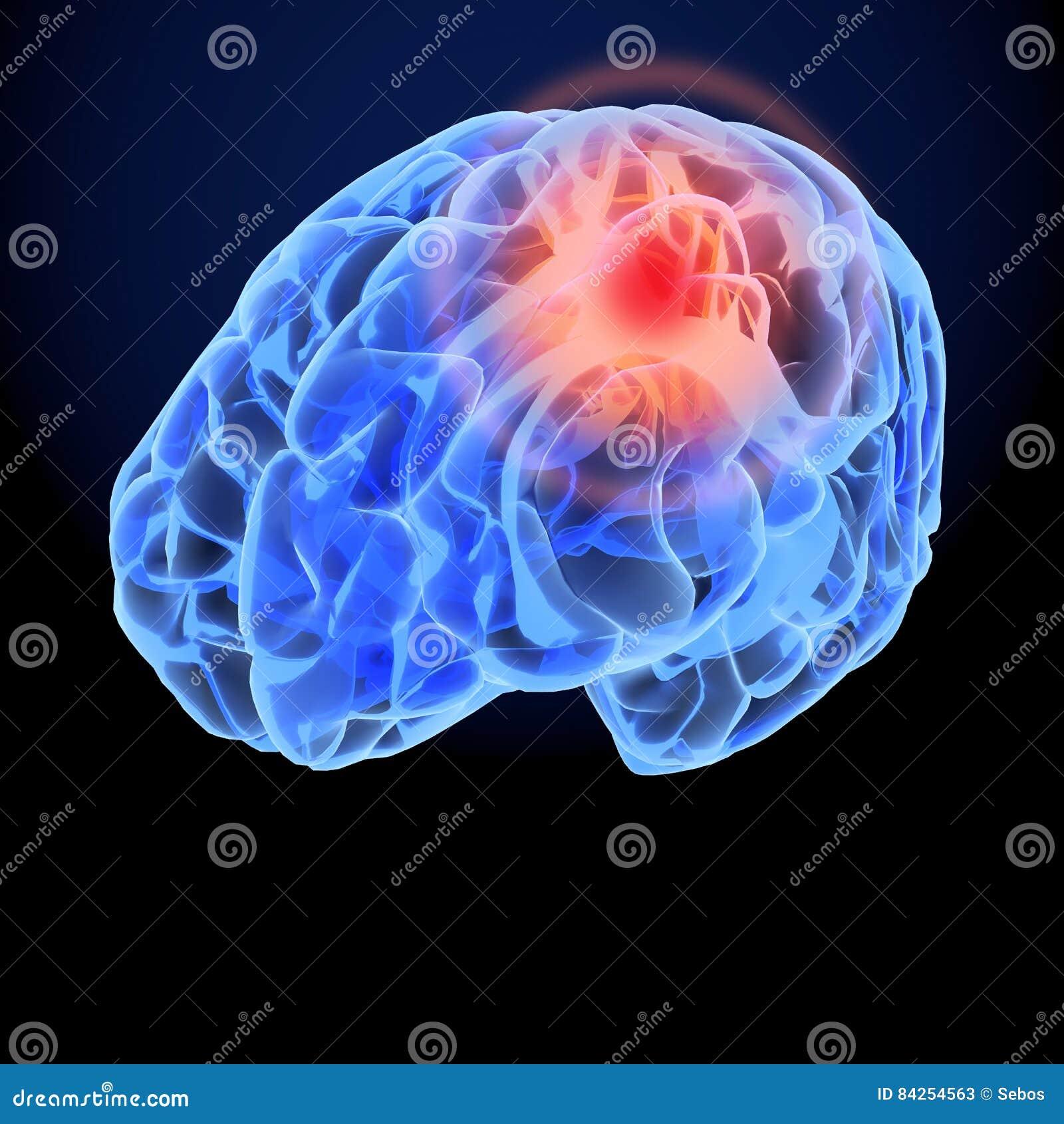 头疼X-射线3D模型 脑子神经元突触,解剖学身体 疾病,顶头痛苦的医疗例证
