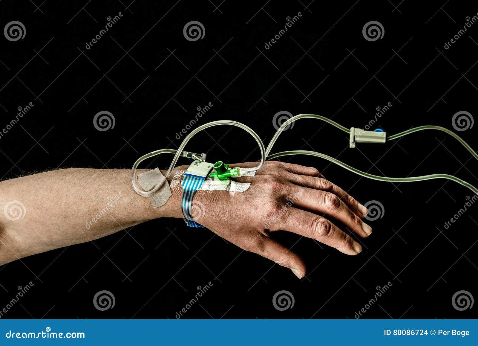 病人的手和胳膊有iv治疗的在黑背景