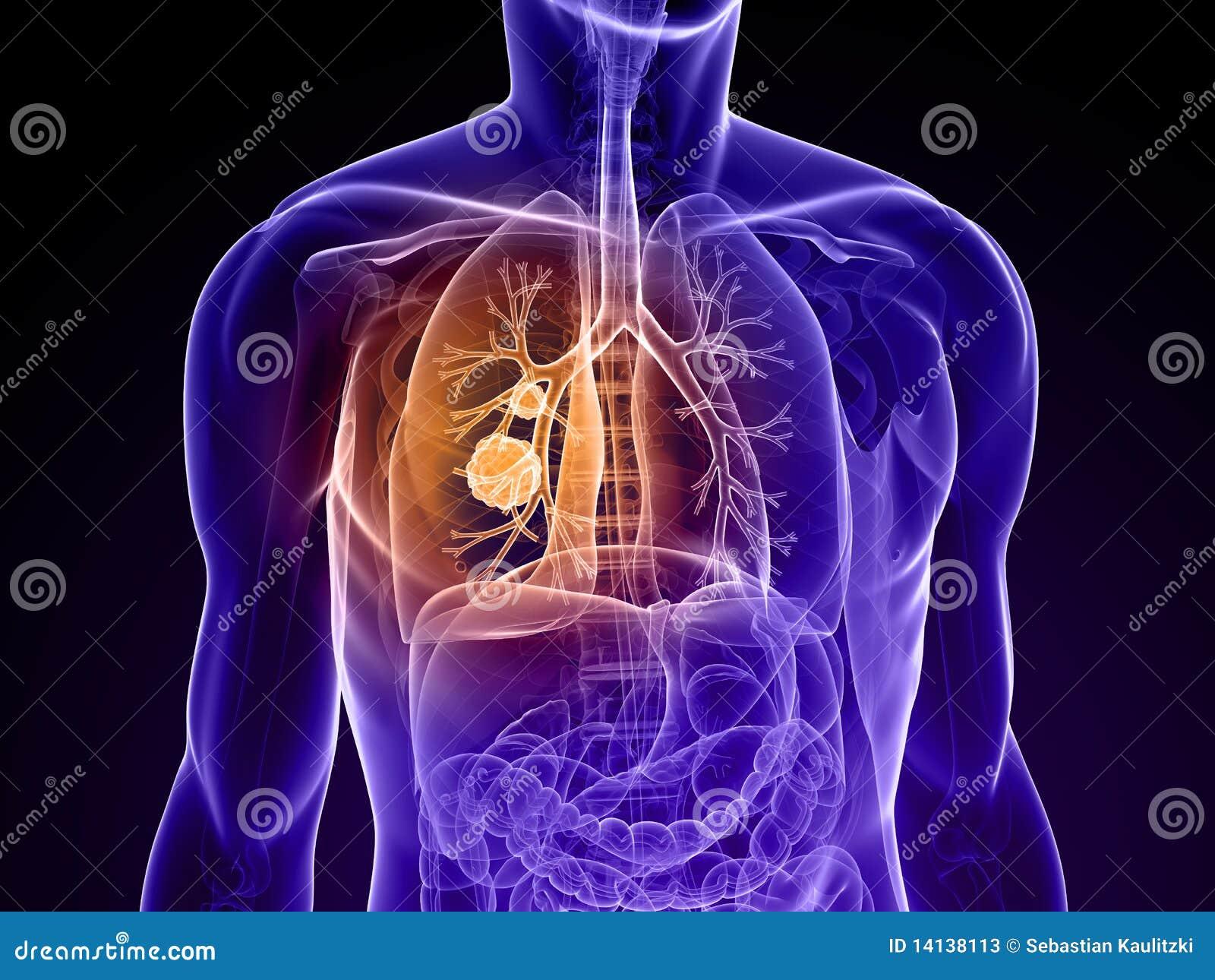 癌症肺图片