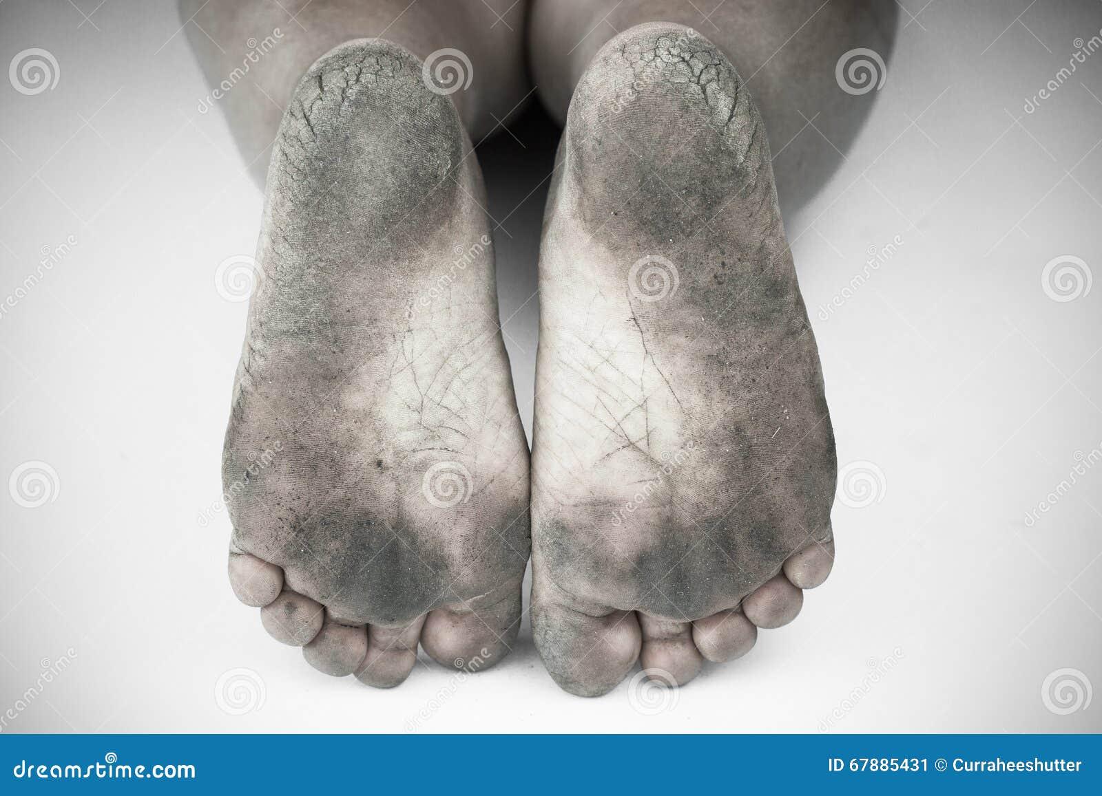 黑白照片或肮脏的脚后面和白色或破裂的脚跟孤立在白色背景,医疗或脚人民的健康