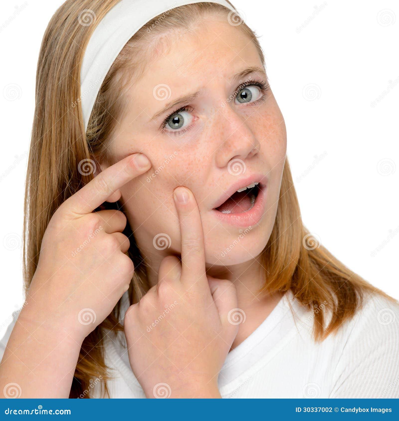 看皮肤被察觉的丘疹紧压的青少年的女孩