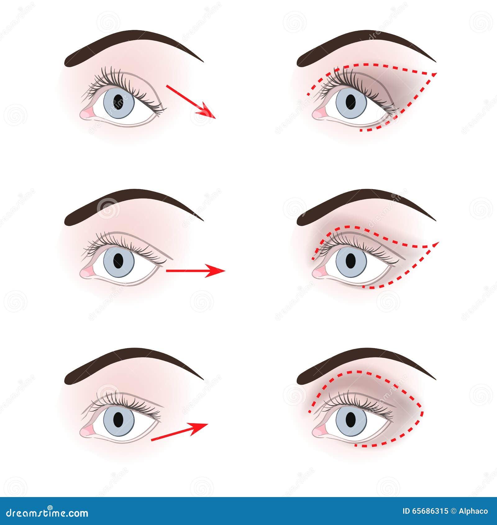 眼皮不同的形状