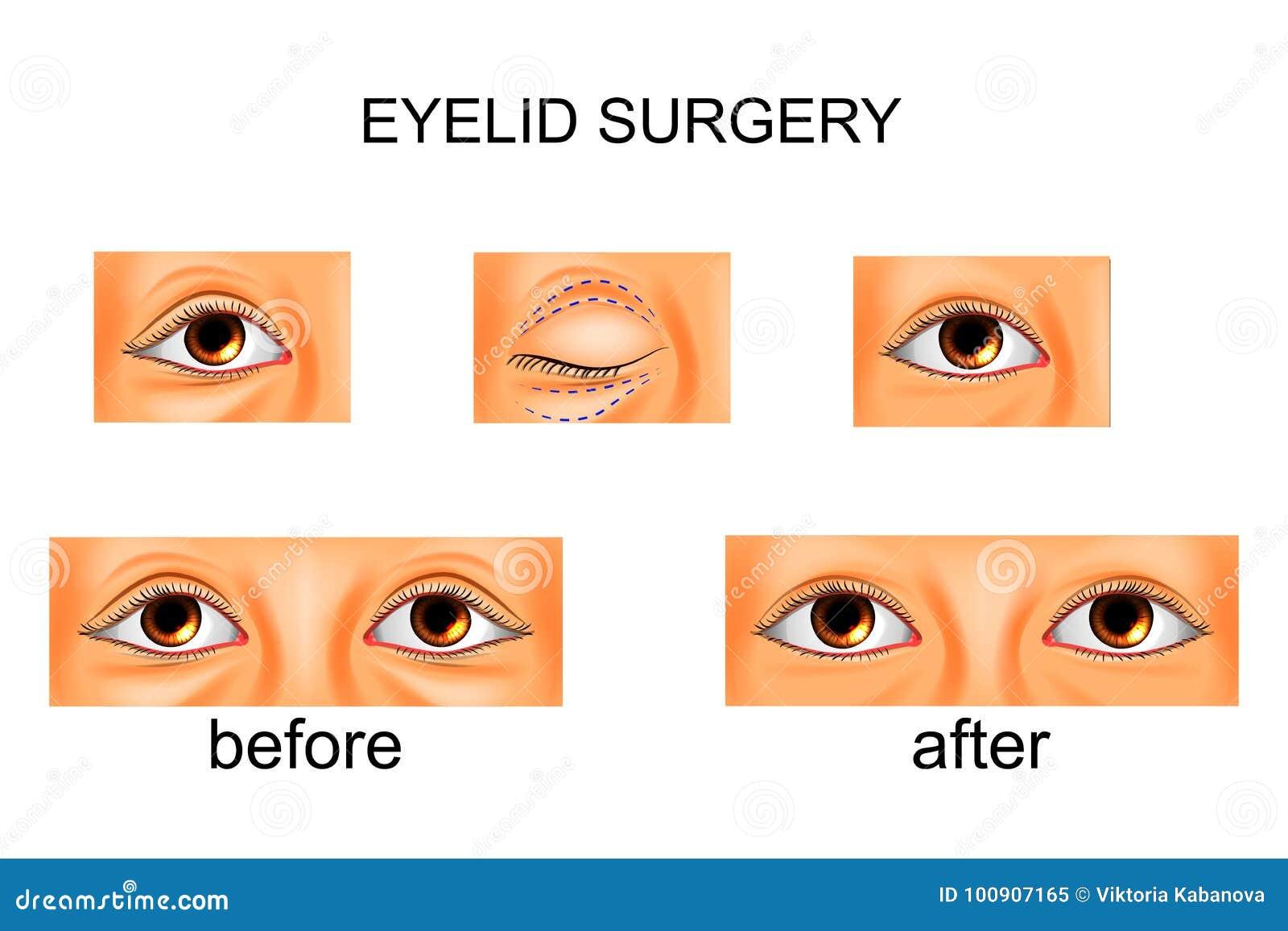 眼皮手术,整容手术