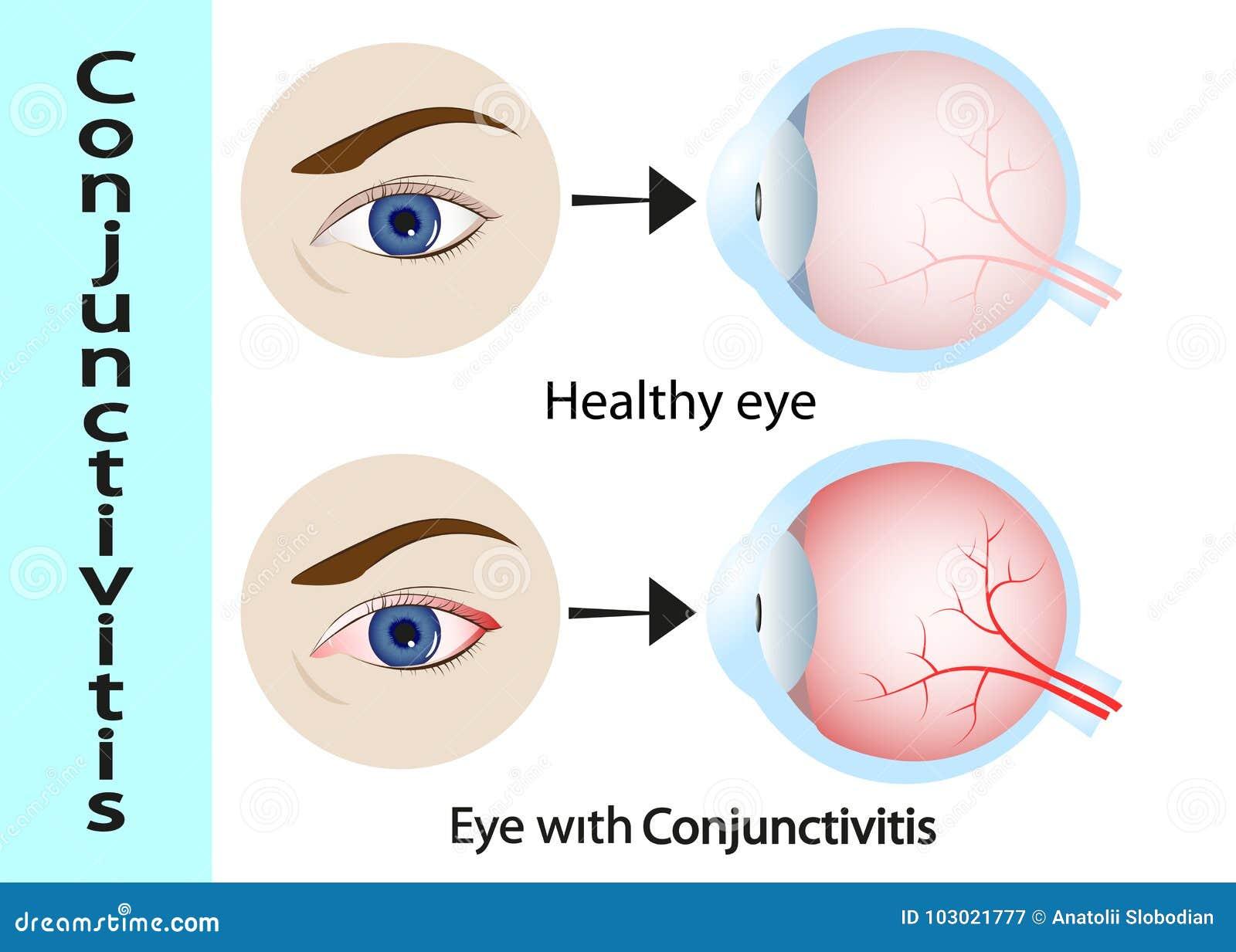 结膜炎 与炎症的桃红色眼睛 外在看法和肉眼和眼皮的垂直剖面