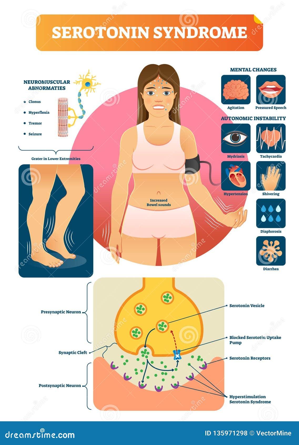 5-羟色胺综合症状与医疗被标记的症状的传染媒介例证策划
