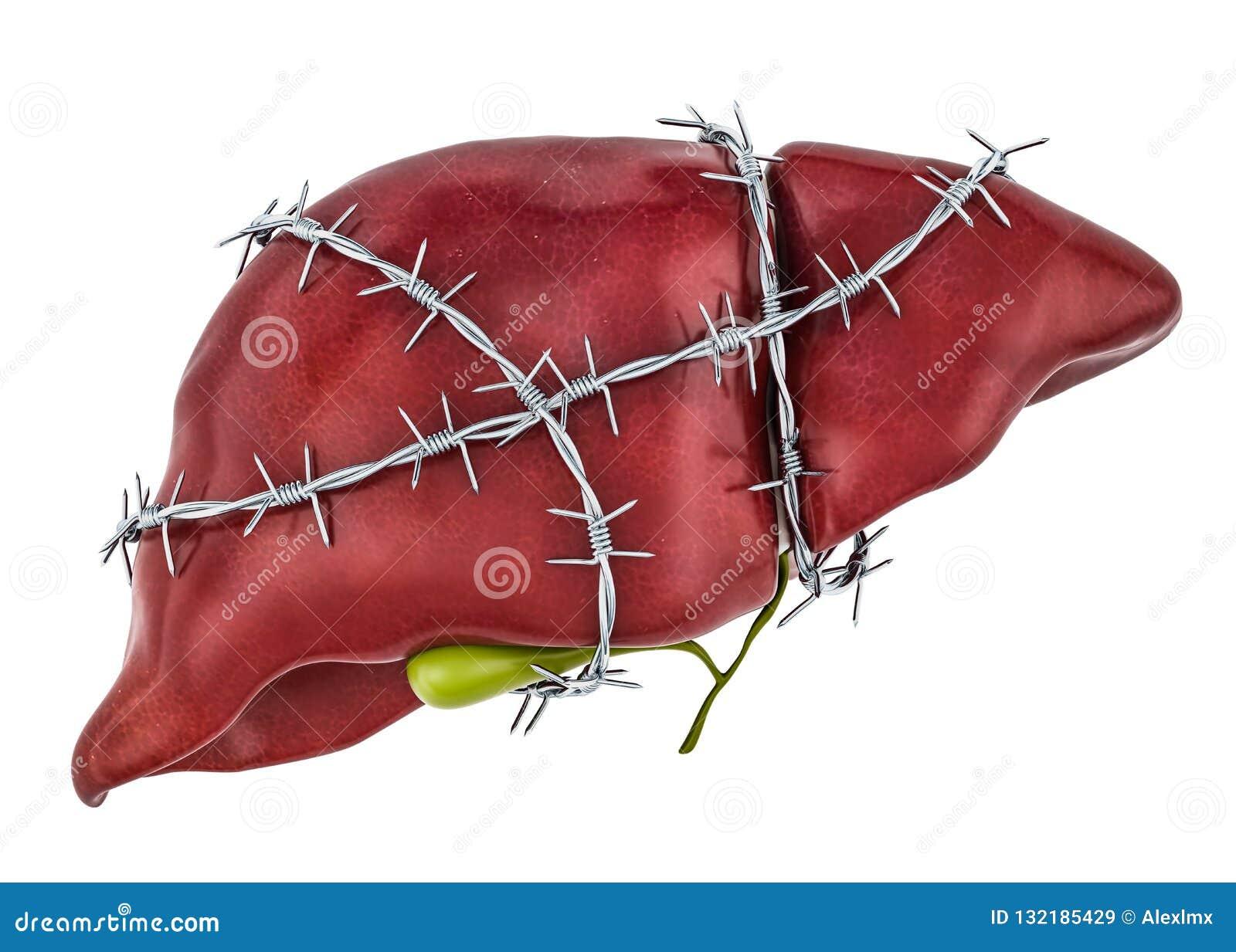 肝脏痛苦概念 有铁丝网的人的肝脏 3d翻译