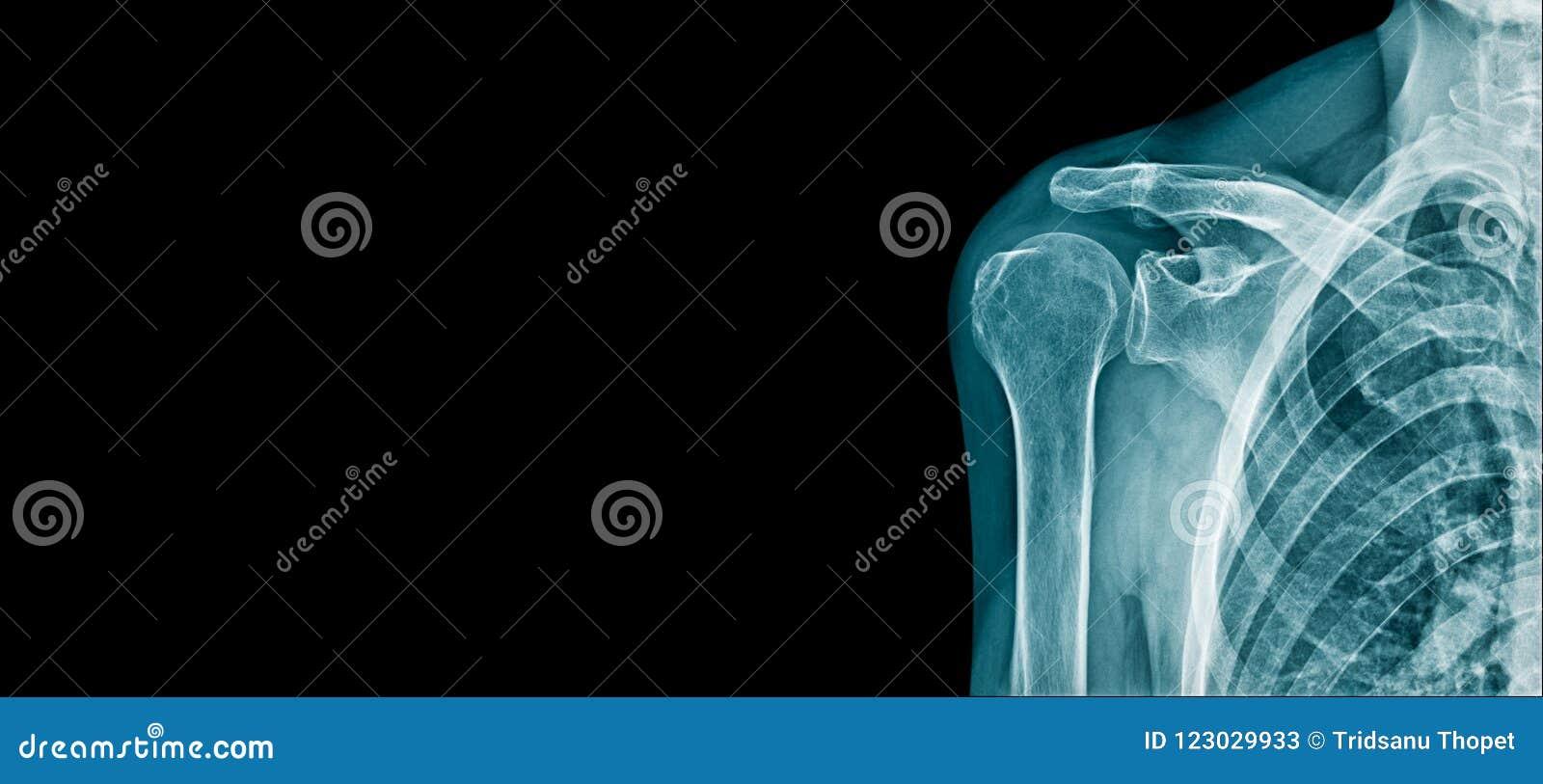 肩膀横幅X-射线图象