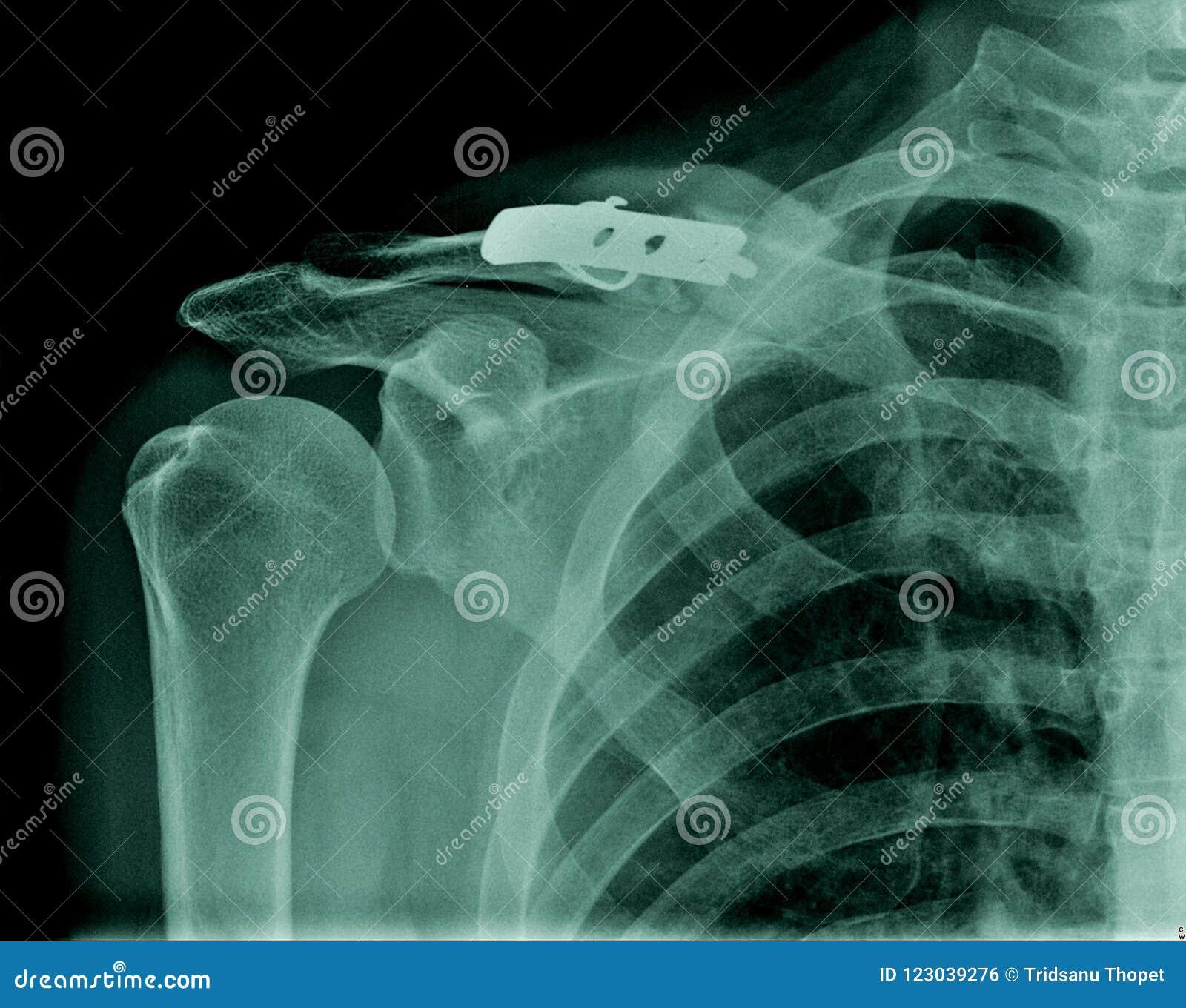 肩膀X-射线图象
