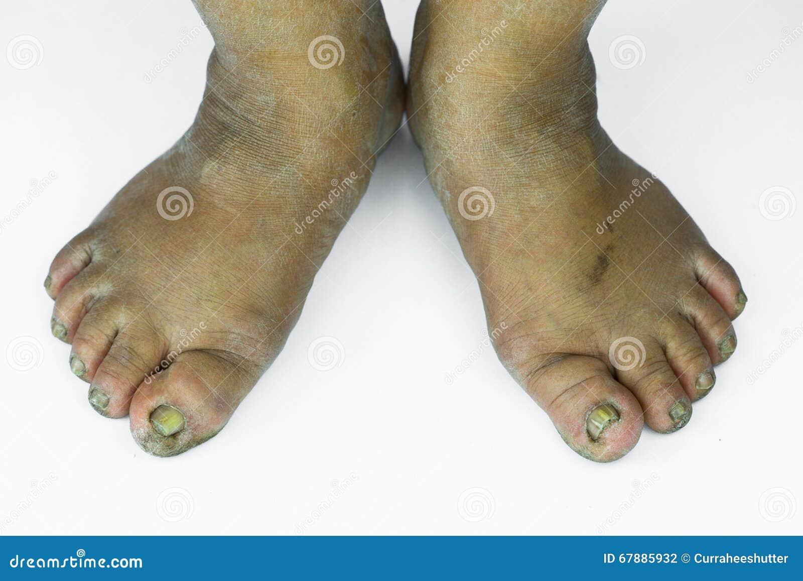 肮脏脚或破裂的脚跟孤立在白色背景、医疗或者脚人民的健康,医疗中心脚跟或脚
