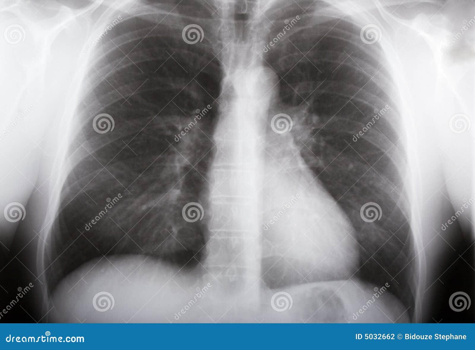 肺X-射线