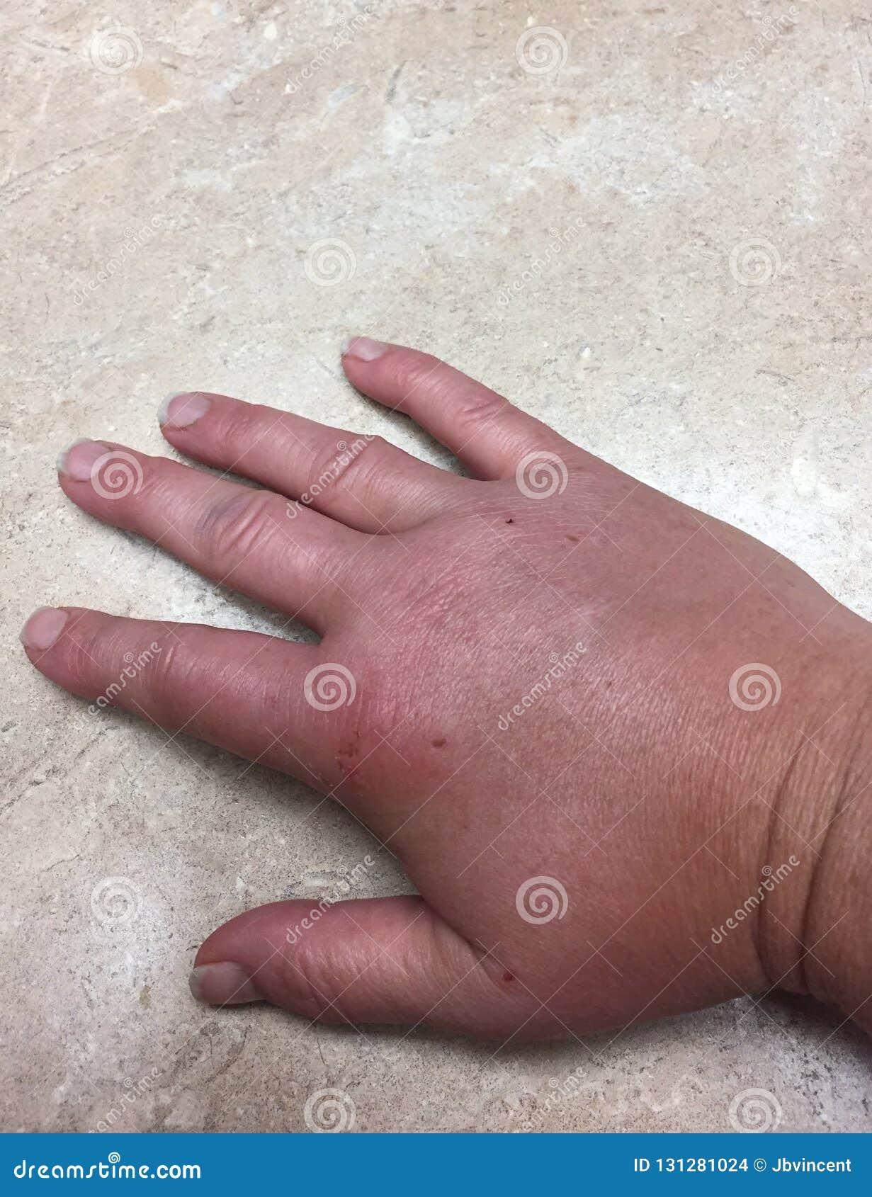 肿大的手特写镜头有臭虫叮咬和红色皮肤的