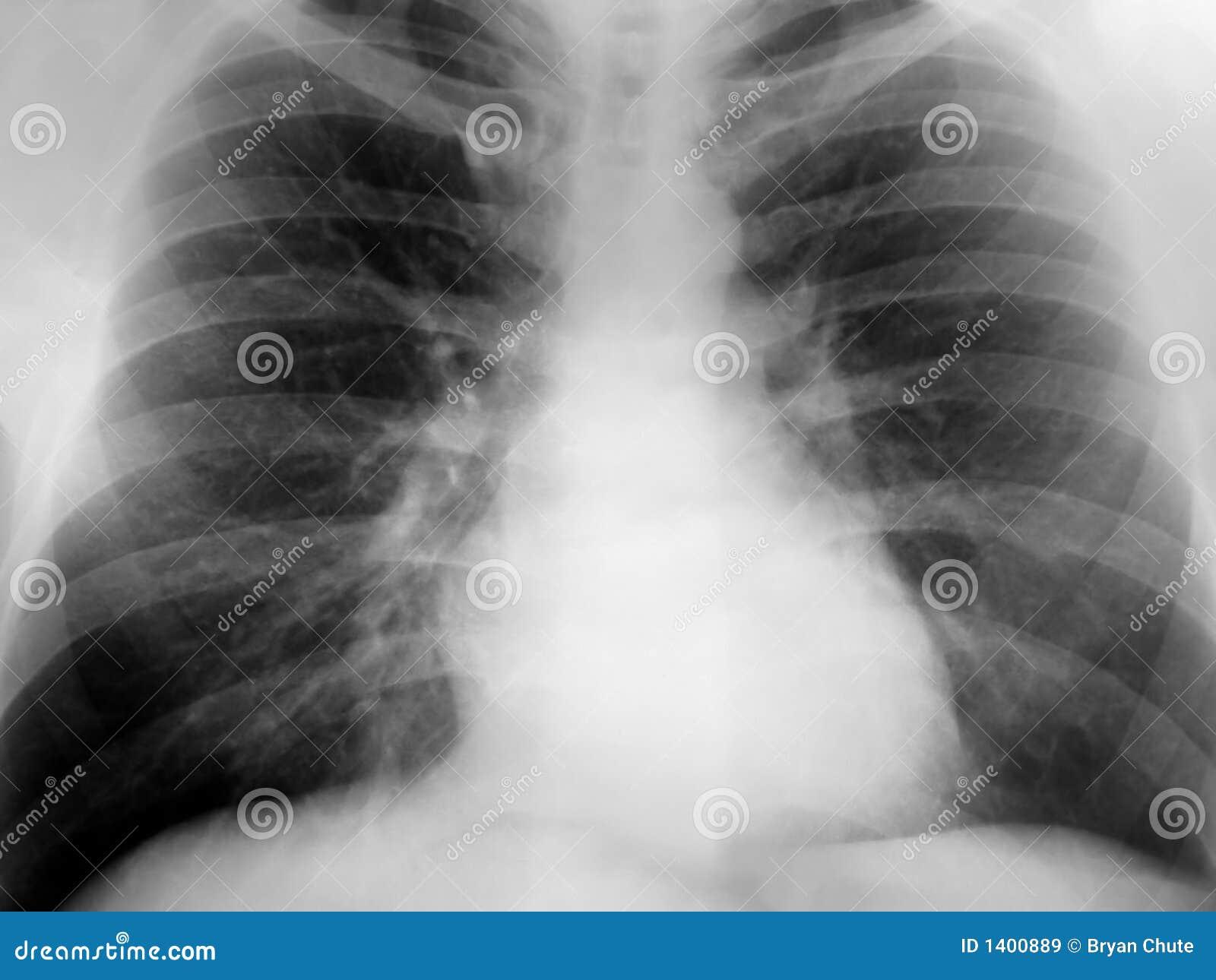 胸口正X-射线