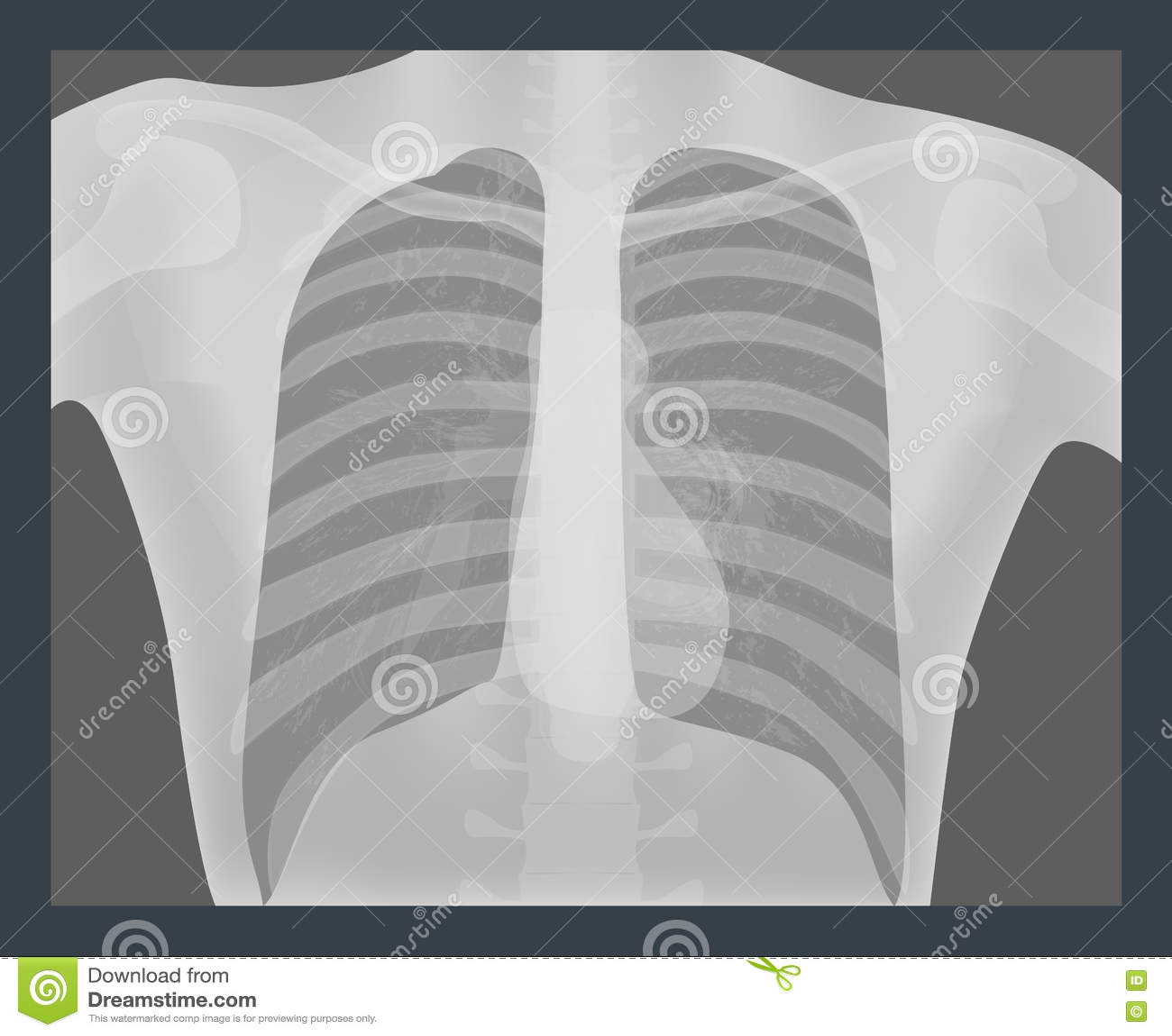 胸部X光传染媒介例证 肺成象