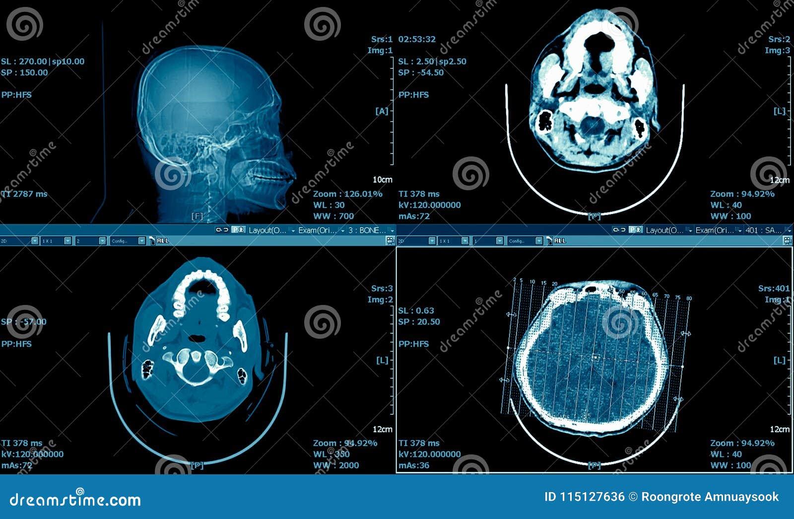 脑子MRI扫描, CT扫描脑子系列,医疗背景