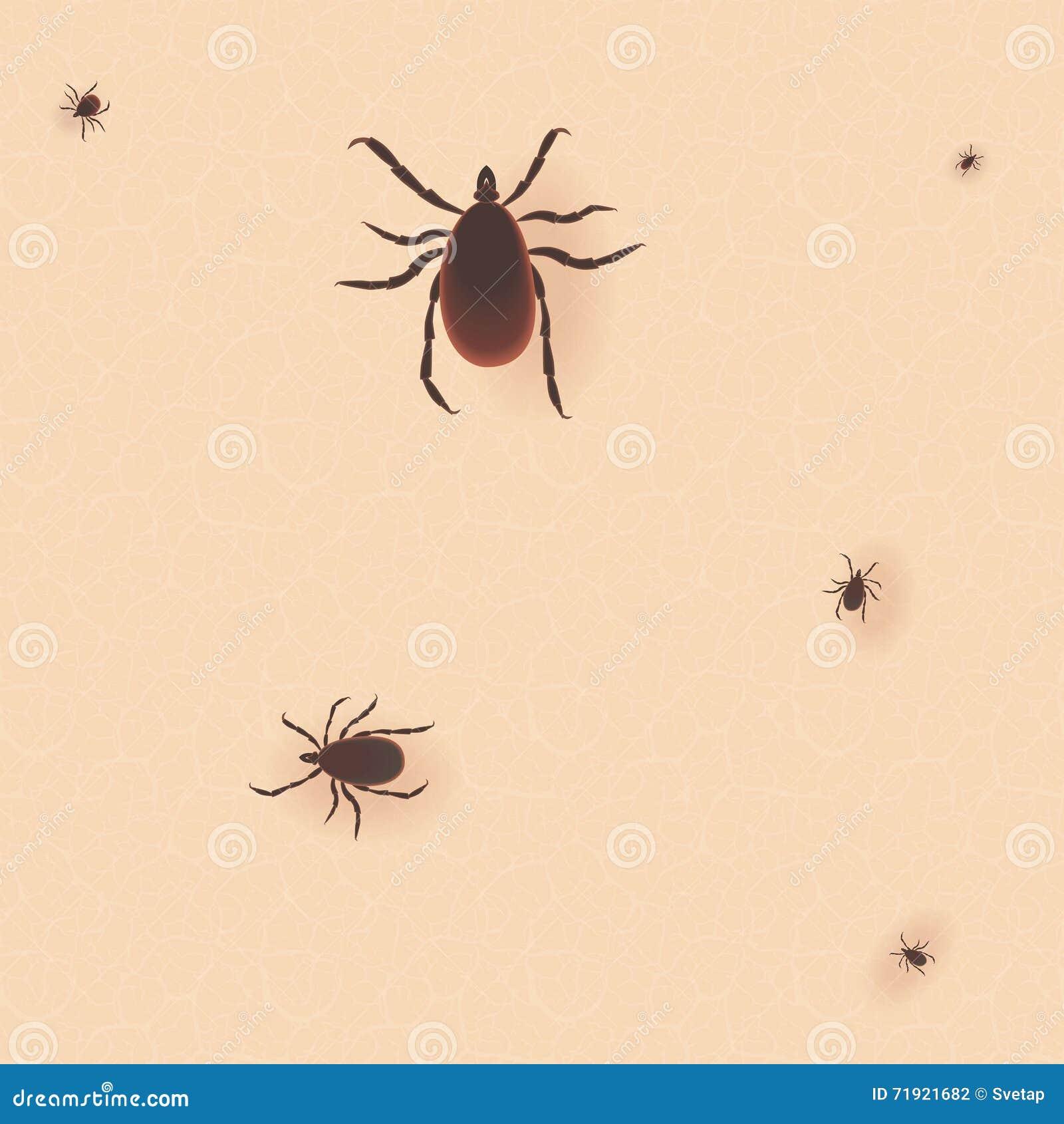 脑炎壁虱 小蜘蛛皮肤尘土寄生生物传染媒介象例证