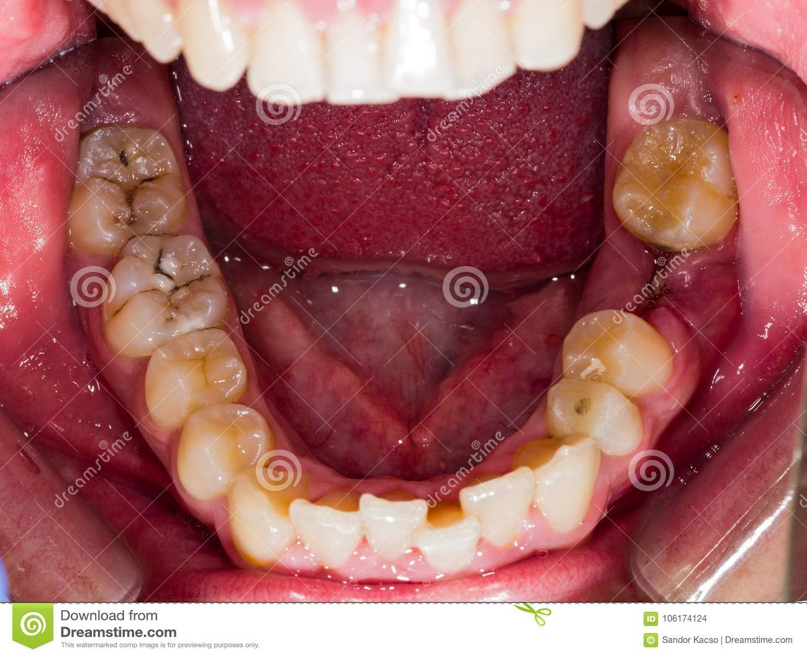 腐朽的人的牙
