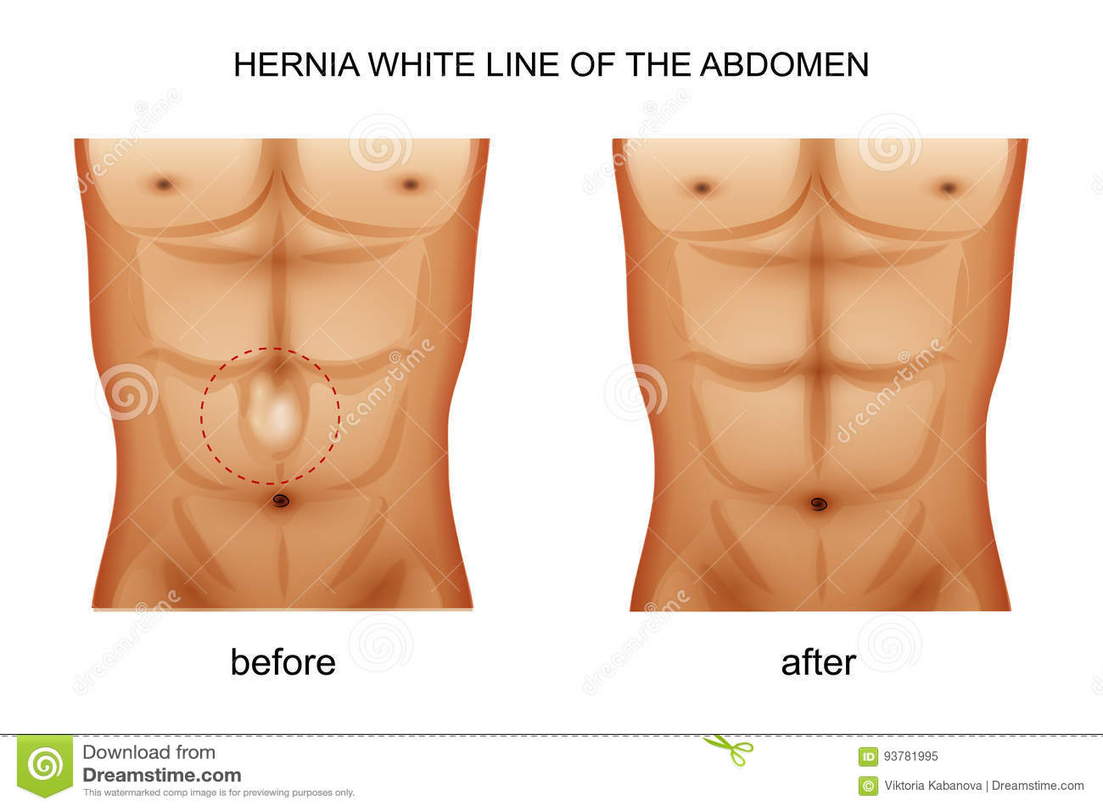 腹部的疝气空白线路