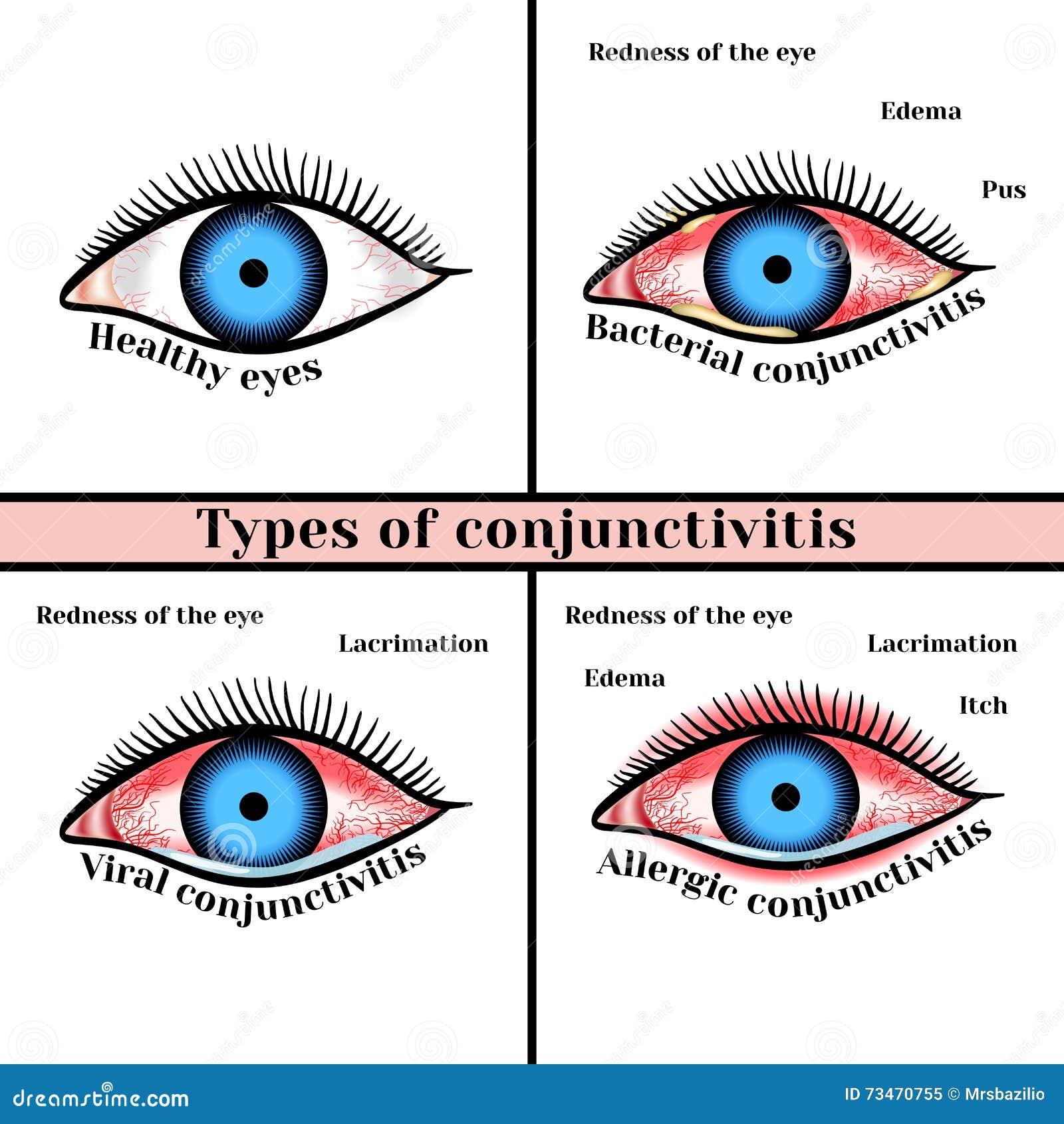结膜炎类型 眼睛炎症疾病