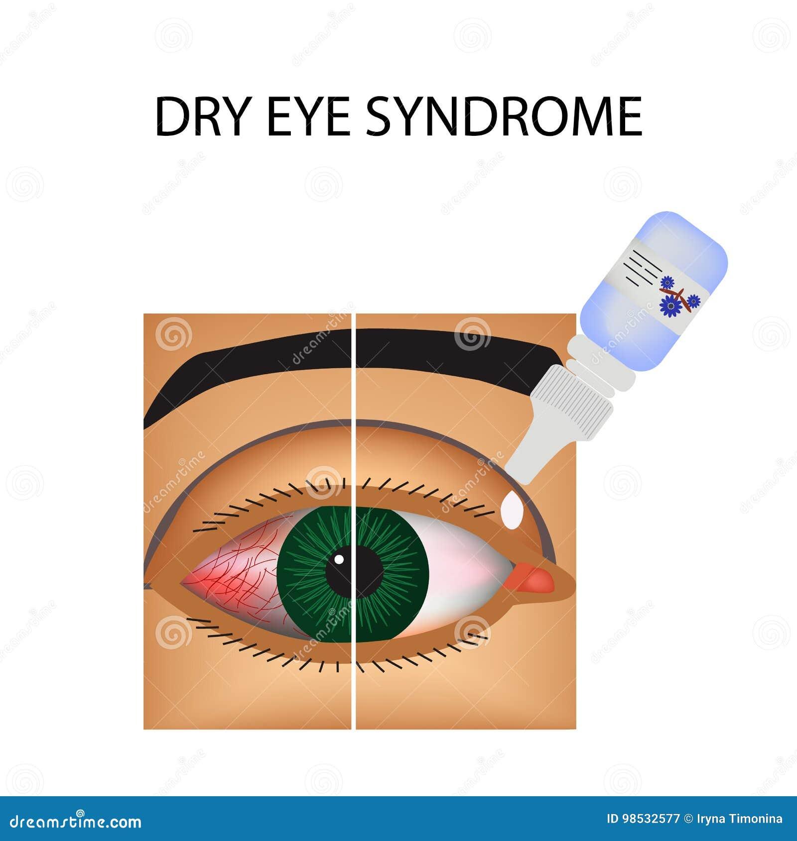 结膜炎 眼睛的赤红和炎症 船 眼药水 处理 Infographics 也corel凹道例证向量