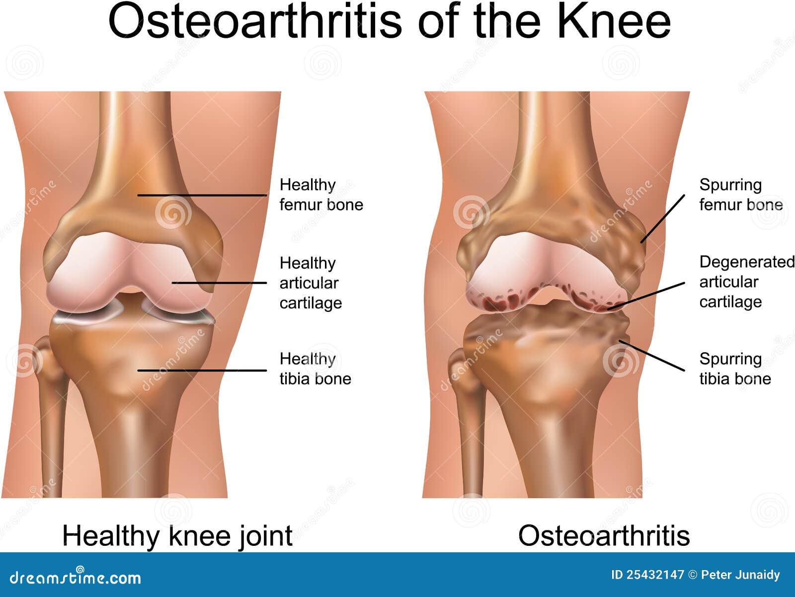 膝盖的骨关节炎