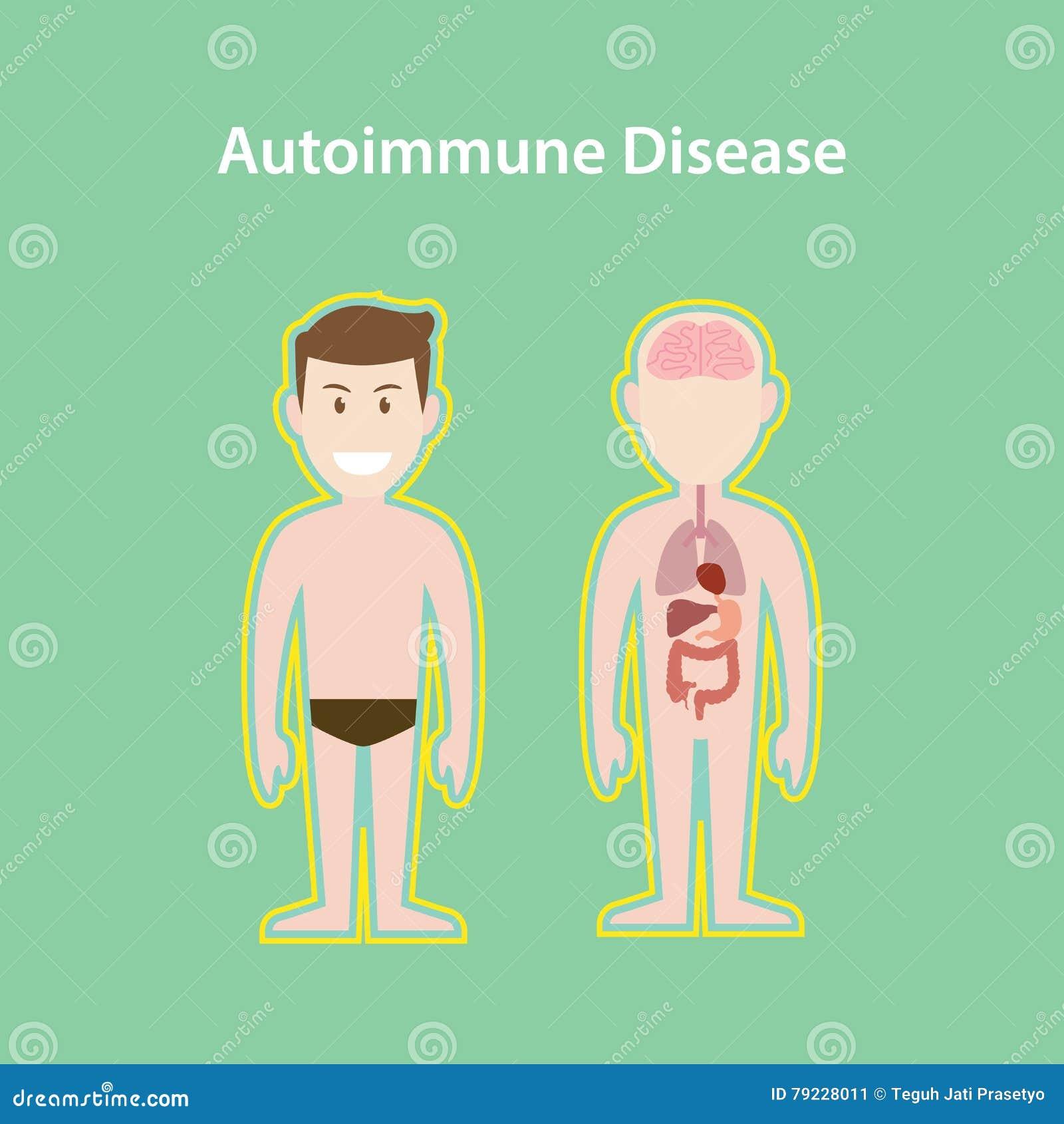 自体免疫病与动画片人的人身体保护的作用的系统例证