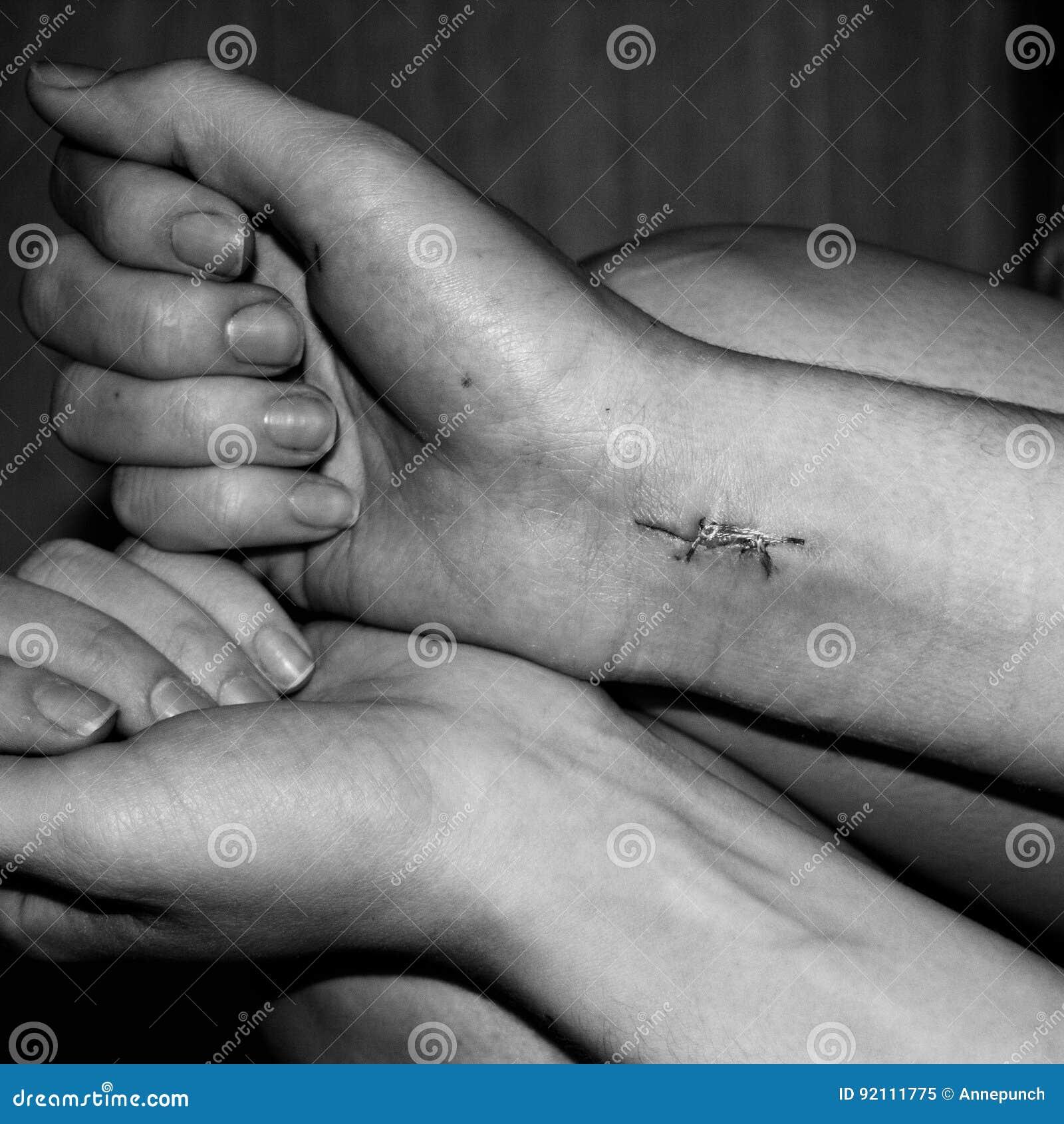 自杀的后果 在女性腕子的外科缝合