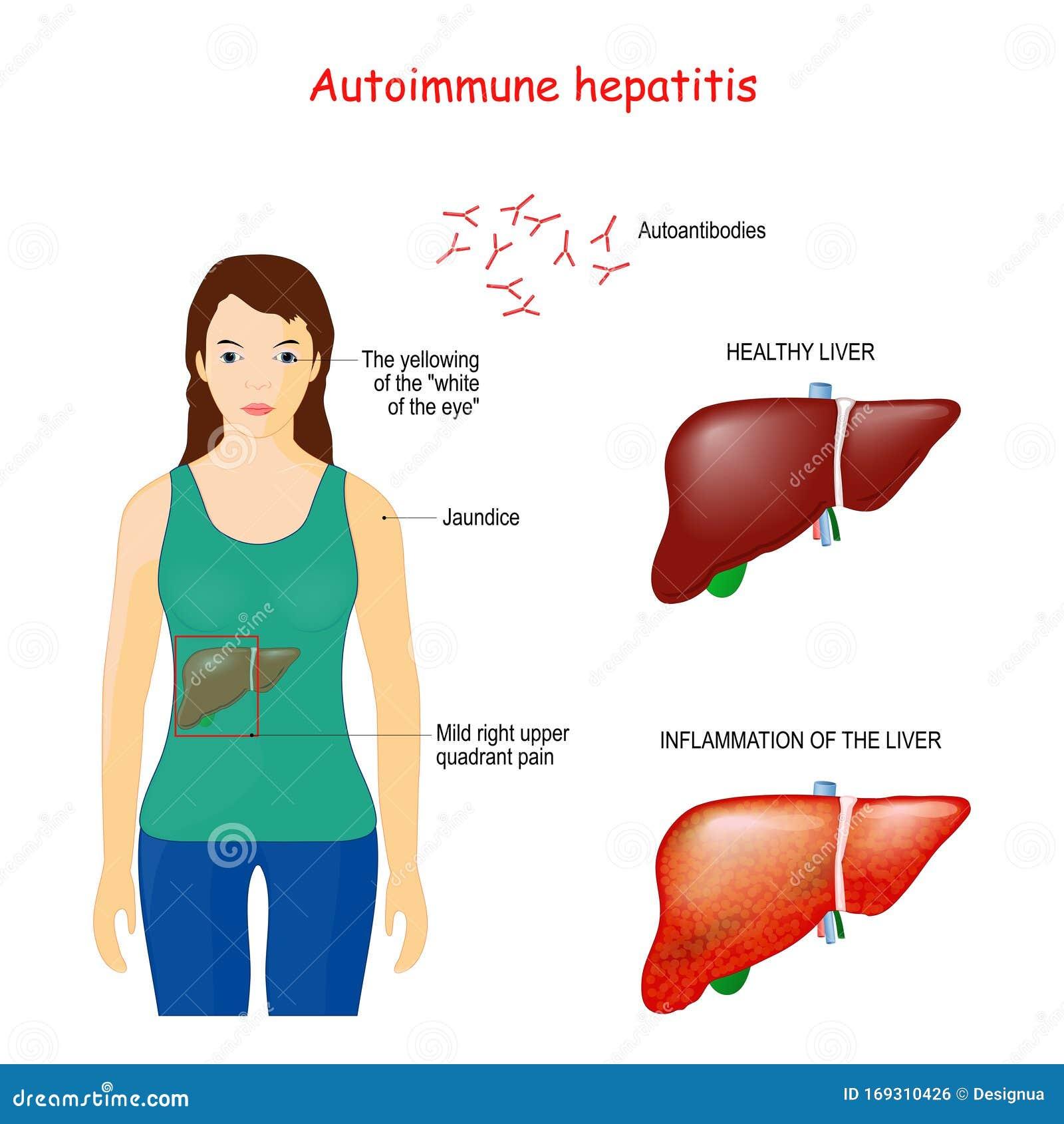 免疫 肝炎 自己 性