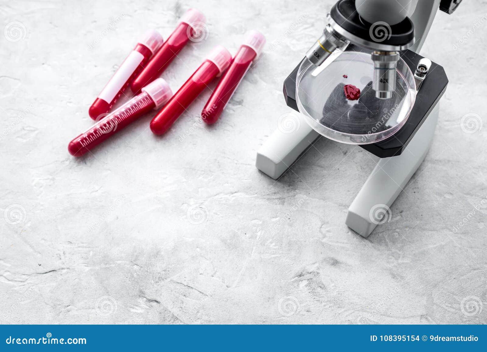 血液分析在clinacal实验室 在显微镜附近的试管在灰色背景顶视图拷贝空间