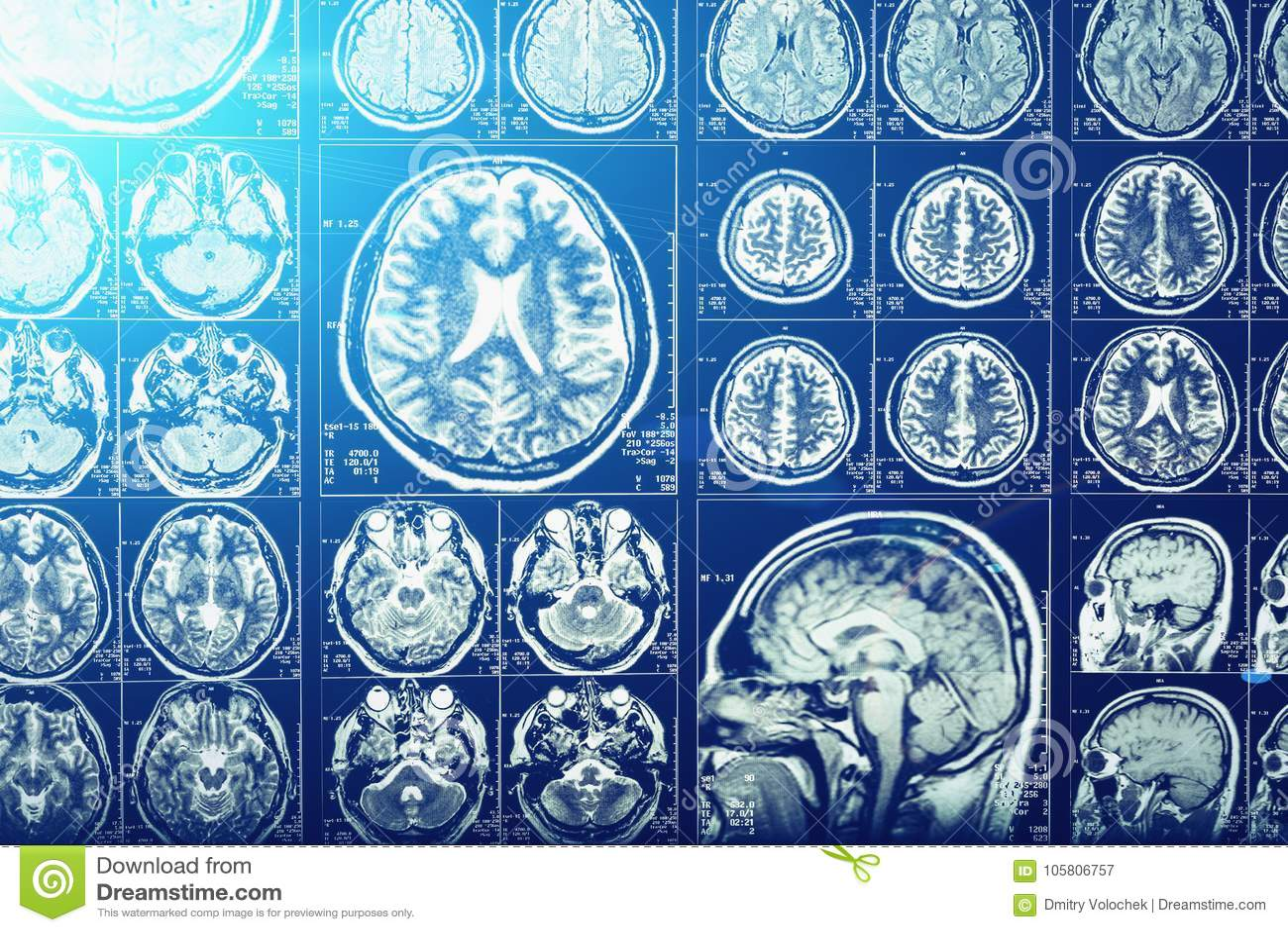 计算机顶头X线体层照相术、X-射线脑子或者短桨扫描图象,蓝色光线影响,神经学