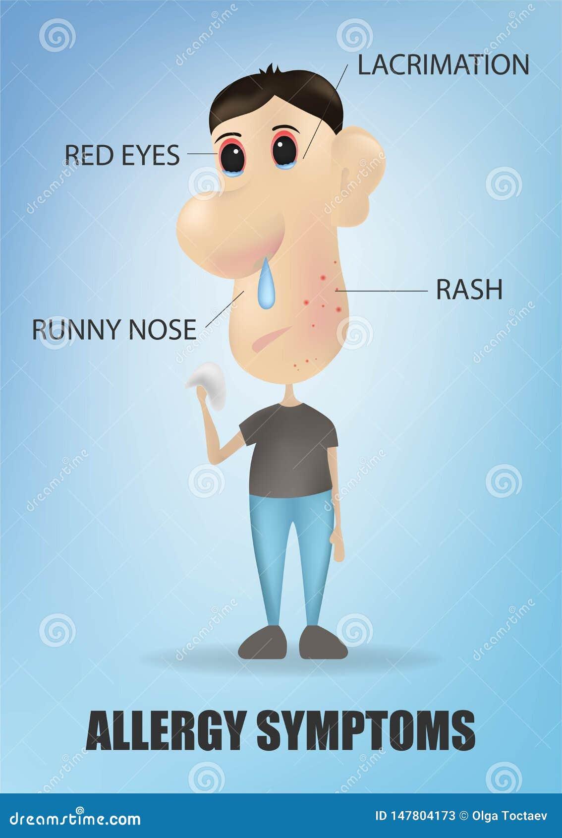 过敏与咳嗽喷嚏发痒的皮疹鼻涕和病的疼痛眼睛的症状概念 r