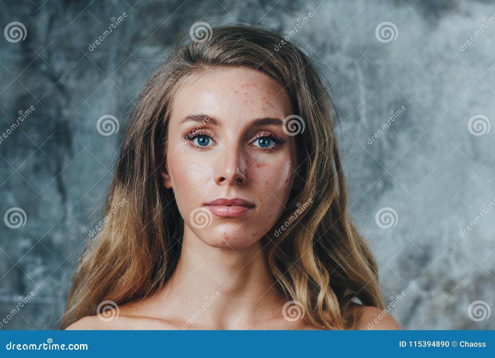 过敏和粉刺在面孔
