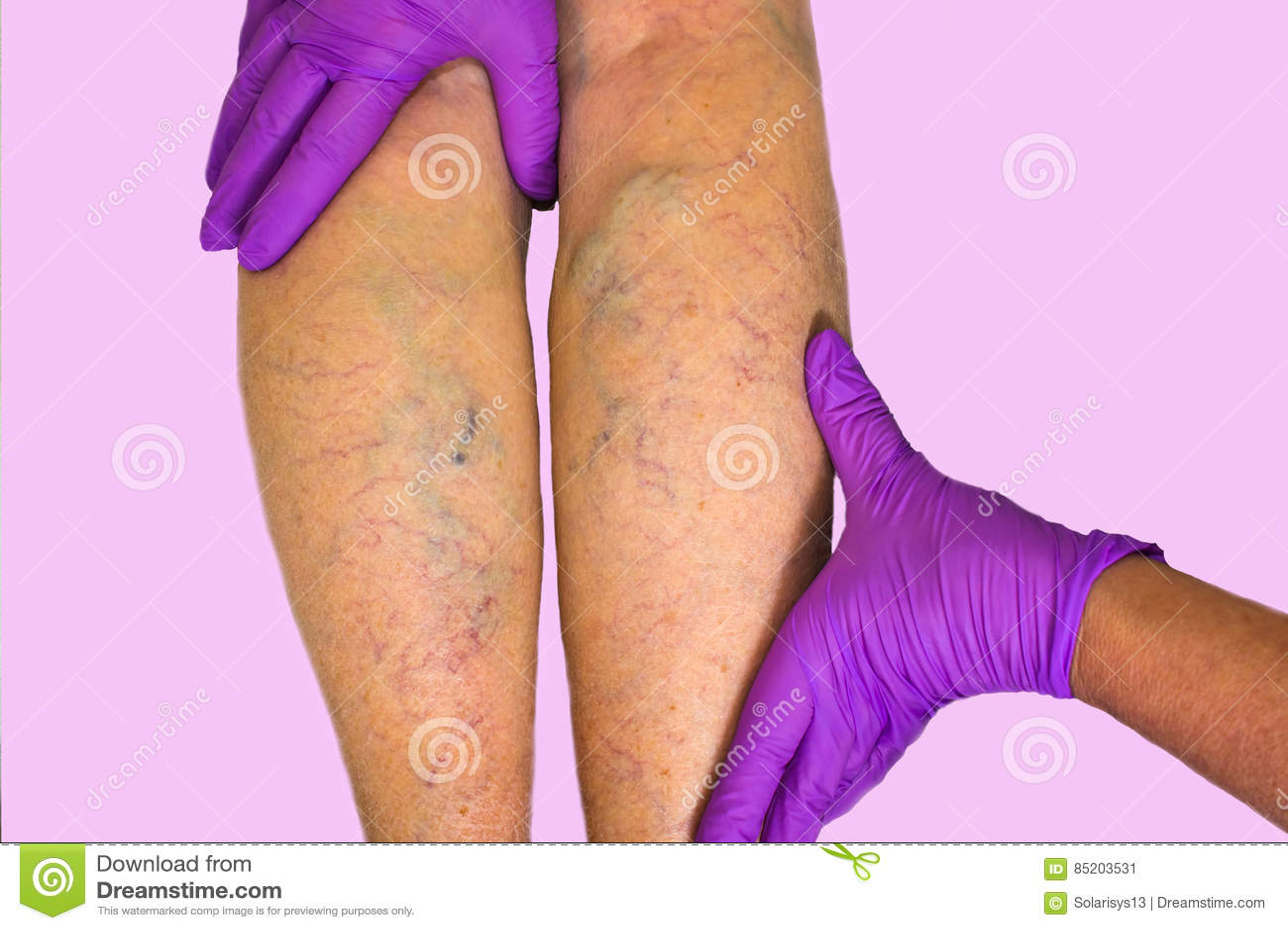降低肢体血管考试,因为多血脉性的不足的嫌疑犯