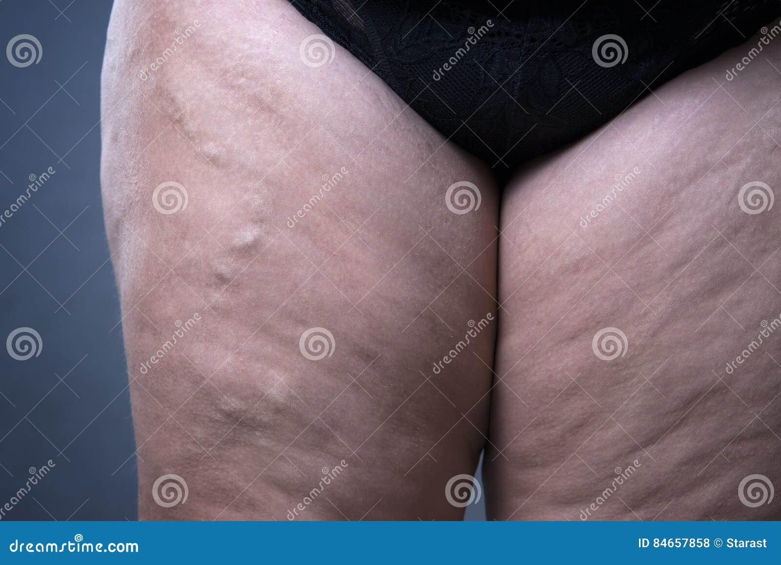 静脉曲张特写镜头,厚实的女性腿