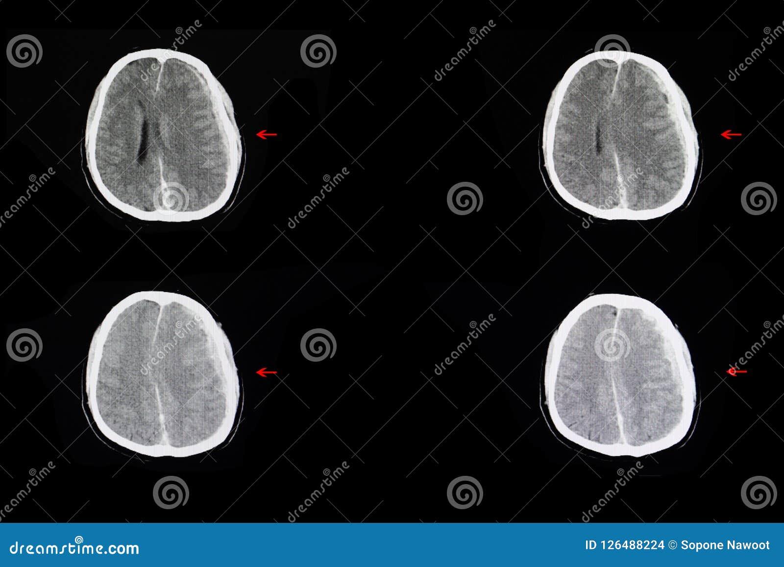 颅内的出血和脑子肿鼓