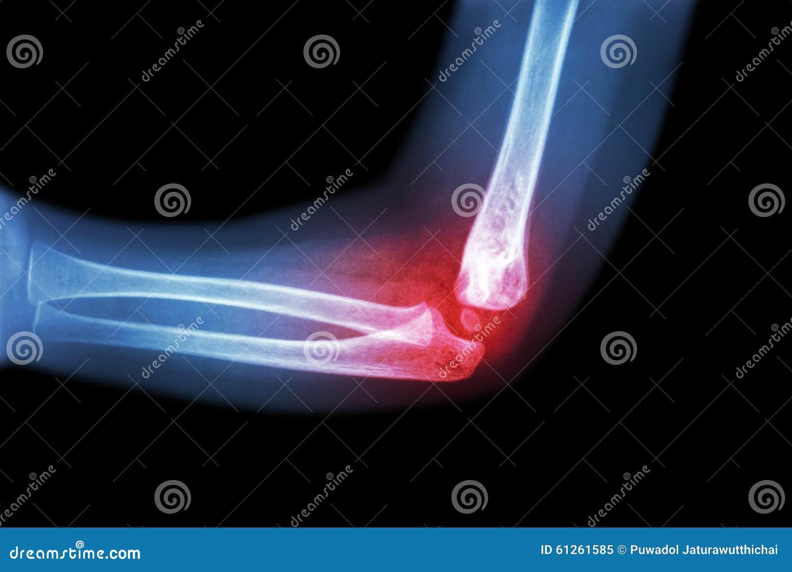 风湿性关节炎,痛风性关节炎(影片X-射线儿童'与关节炎的s手肘在手肘) (侧视图,侧向)