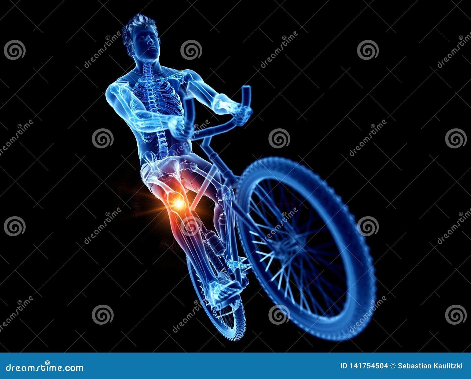 骑自行车者痛苦的膝盖