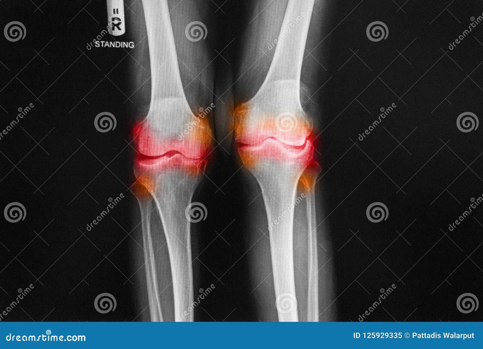 骨关节炎右膝先前影片的X-射线AP -膝盖的后部