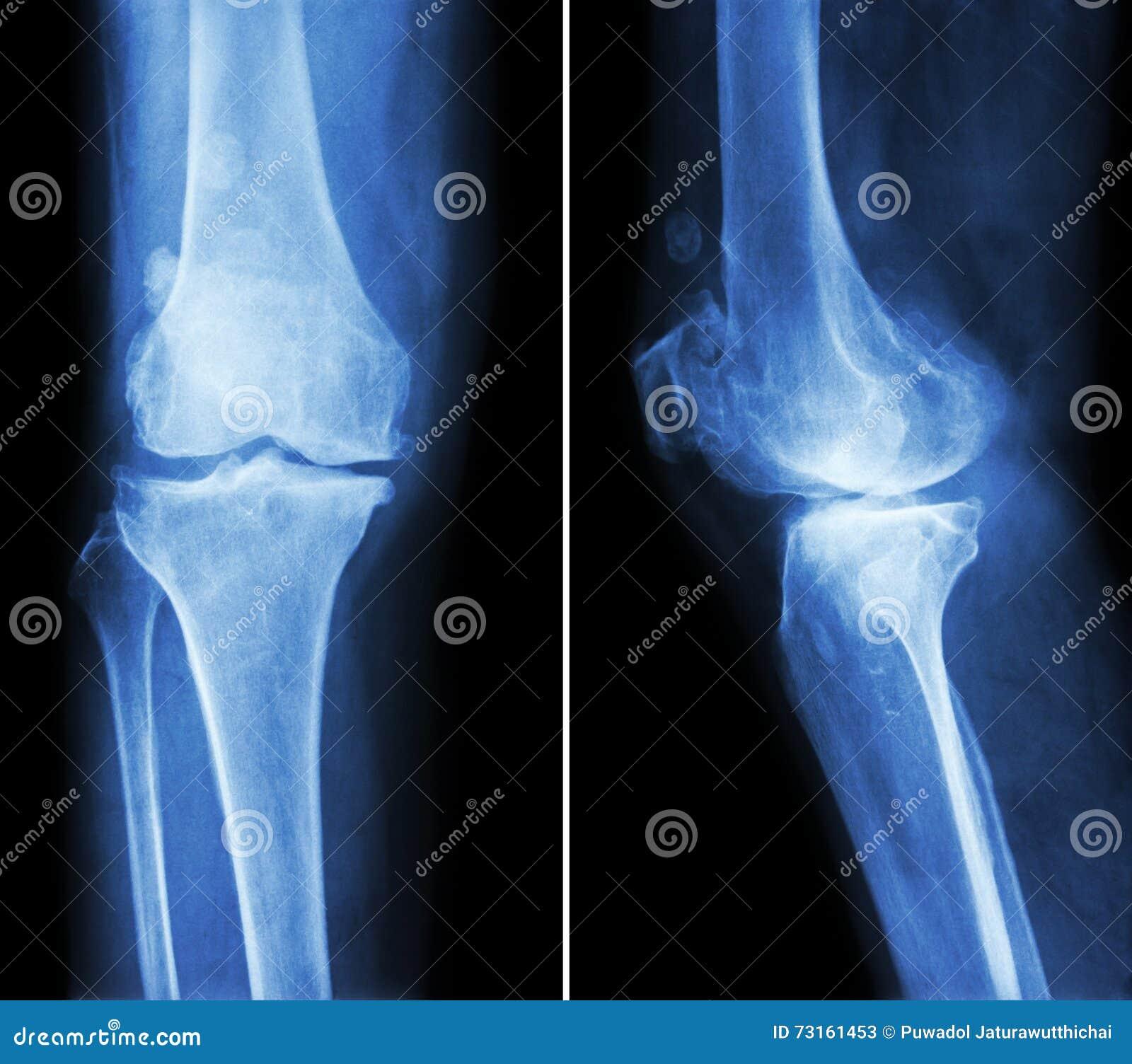 骨关节炎膝盖 影片X-射线膝盖(先前-后部和侧向看法)展示狭窄联接空间,骨赘(踢马刺),