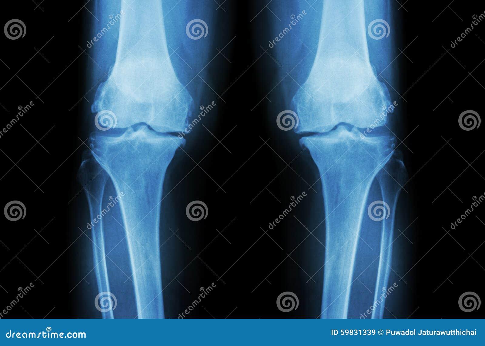 骨关节炎膝盖(OA膝盖) 两影片的X-射线膝盖(正面图)展示狭窄联接空间(联合软骨损失),骨赘