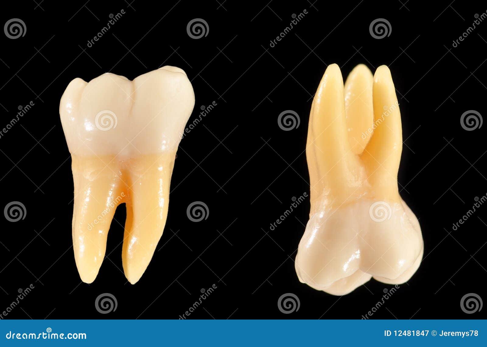 黑色查出的槽牙牙