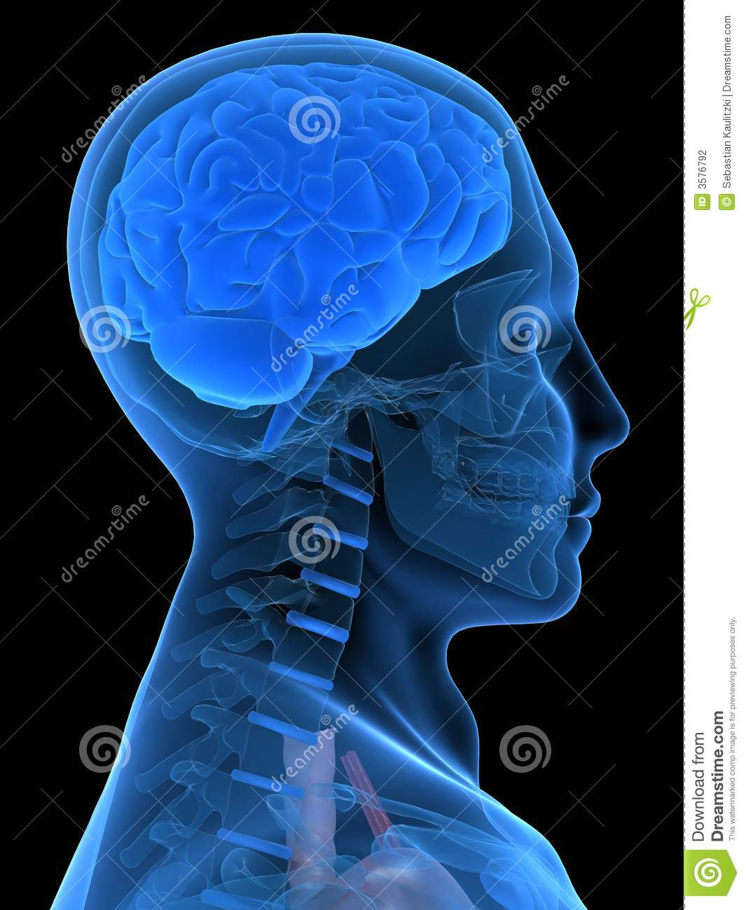156 Hs12 Intradermal Injection Arm together with Anatomy Of The Eye 405086 01xr likewise Finished further Blood Vessel Eruption In Brain together with Royalty Free Stock Images Damaged Healthy Myelin Sheaths Image27231989. on brain in circulatory system