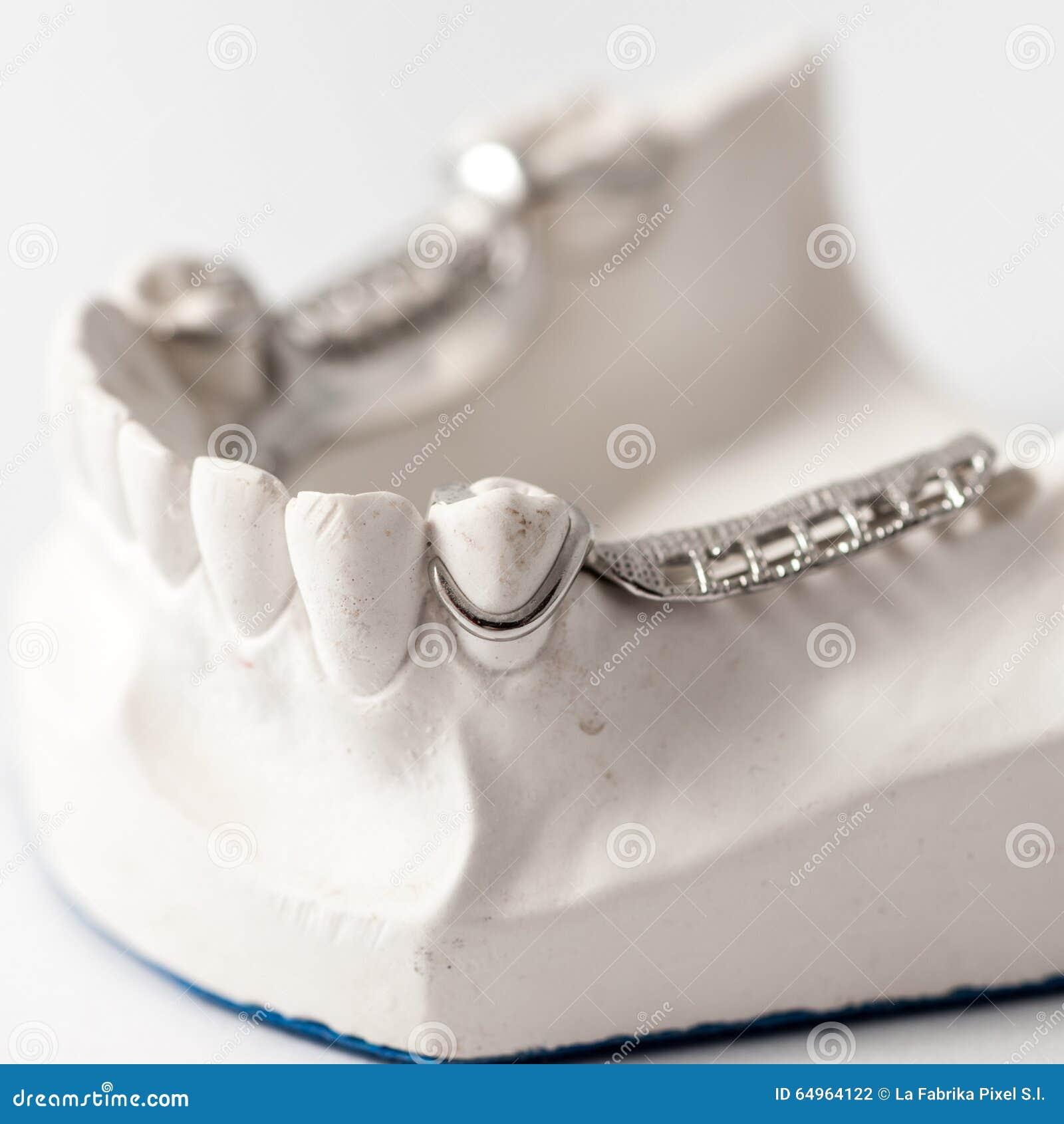 Abbassi la protesi dentaria parziale con i collegamenti