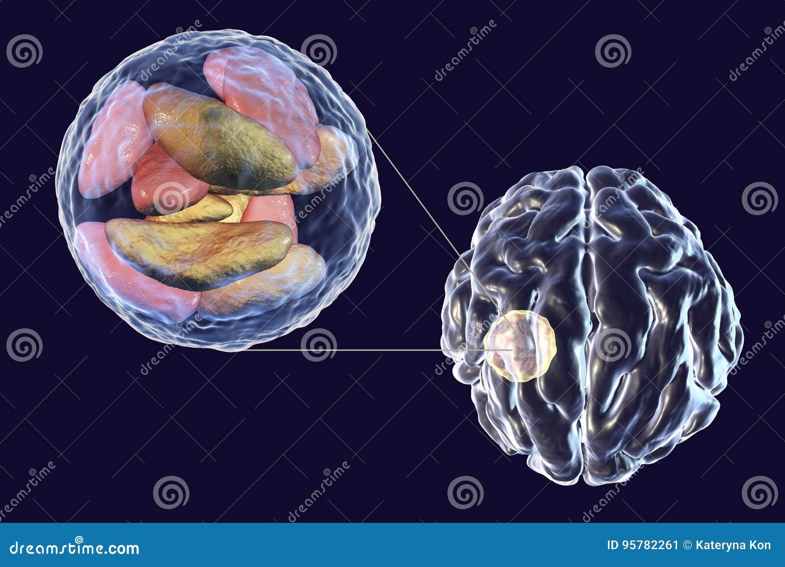 parásito en el cerebro