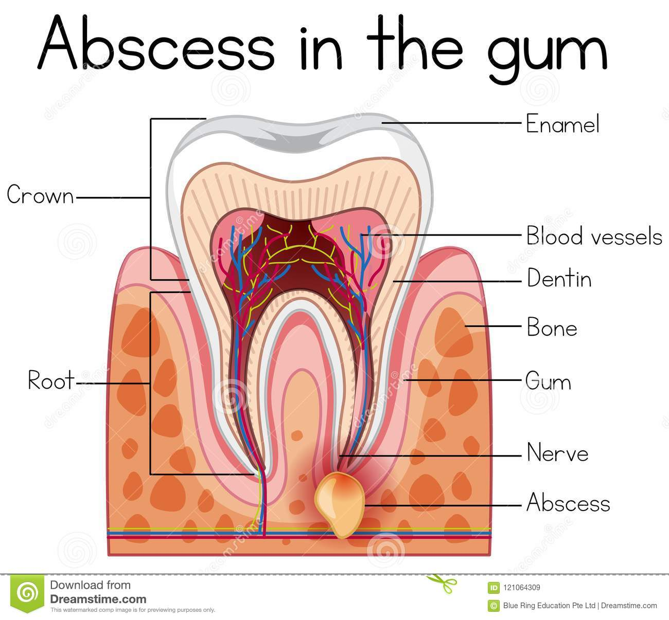 Abscess in the Gum Diagram