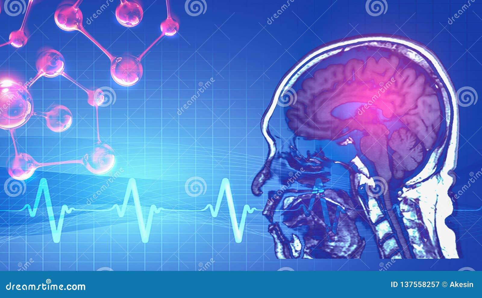 Magnetic resonance image MRI of brain