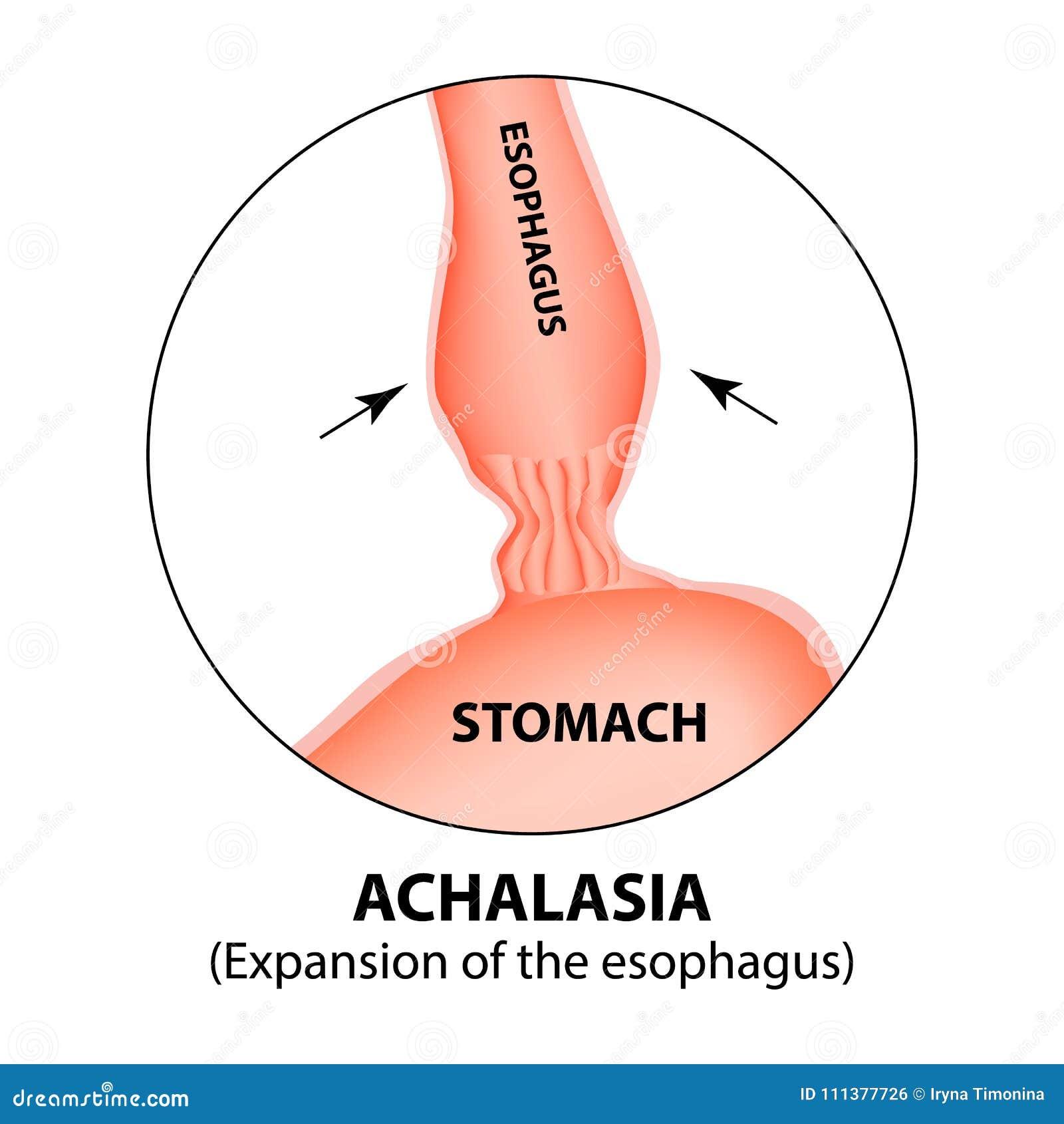 Achalasia Del Esófago Extensión Del Esófago Hernia Infografía ...