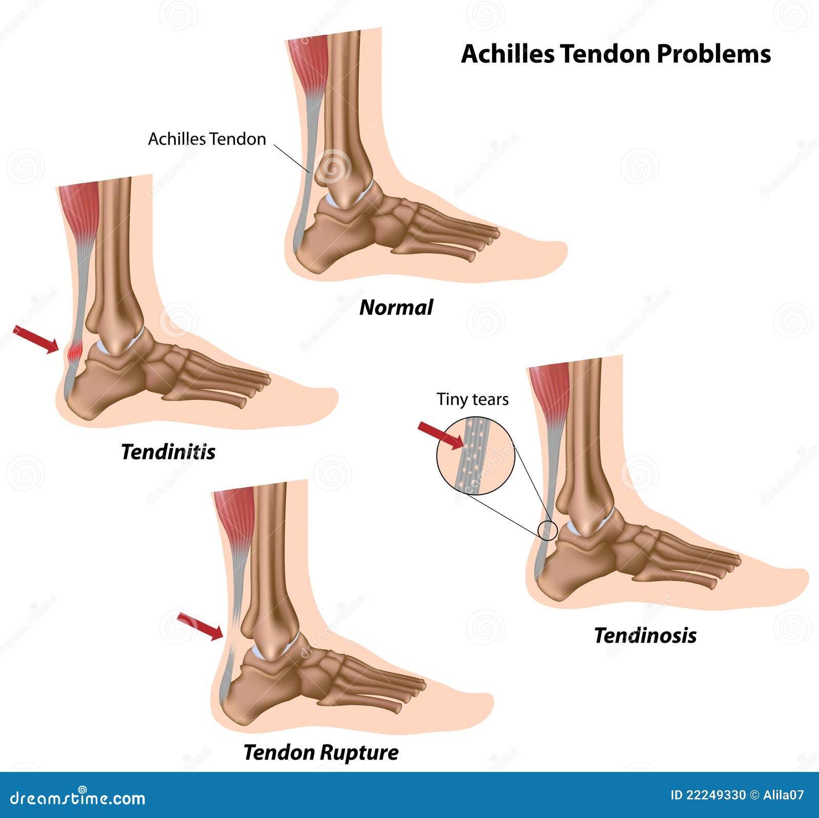 Achilles ścięgna problemy