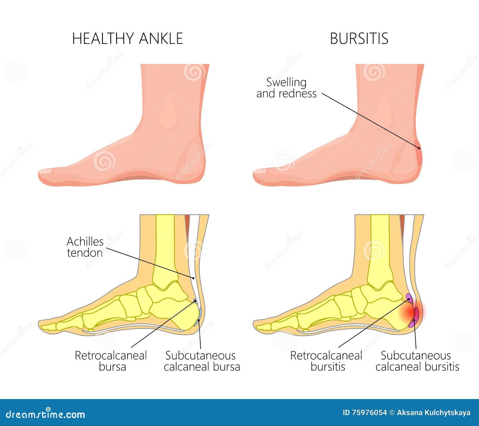 Achilles bursitis stock vector. Illustration of metatarsal - 75976054